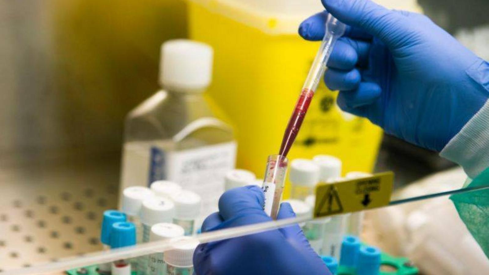 Người mắc Covid-19 sẽ mang kháng thể sau khi phục hồi?
