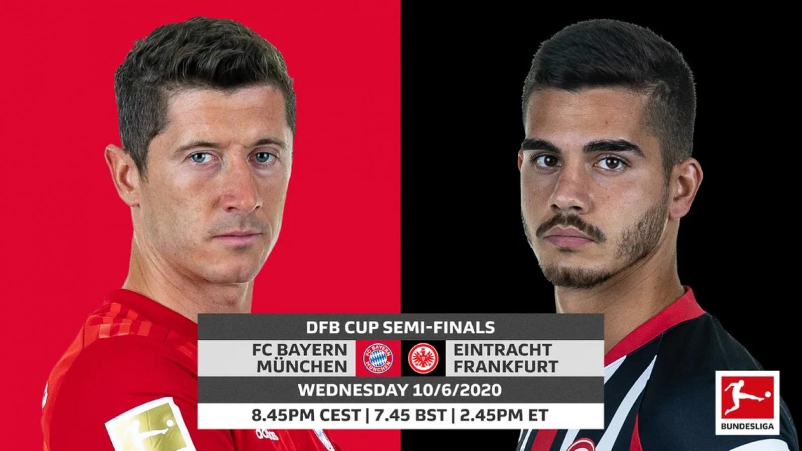 Đội hình dự kiến Bayern - Frankfurt: Bán kết Cúp Quốc gia Đức 2020