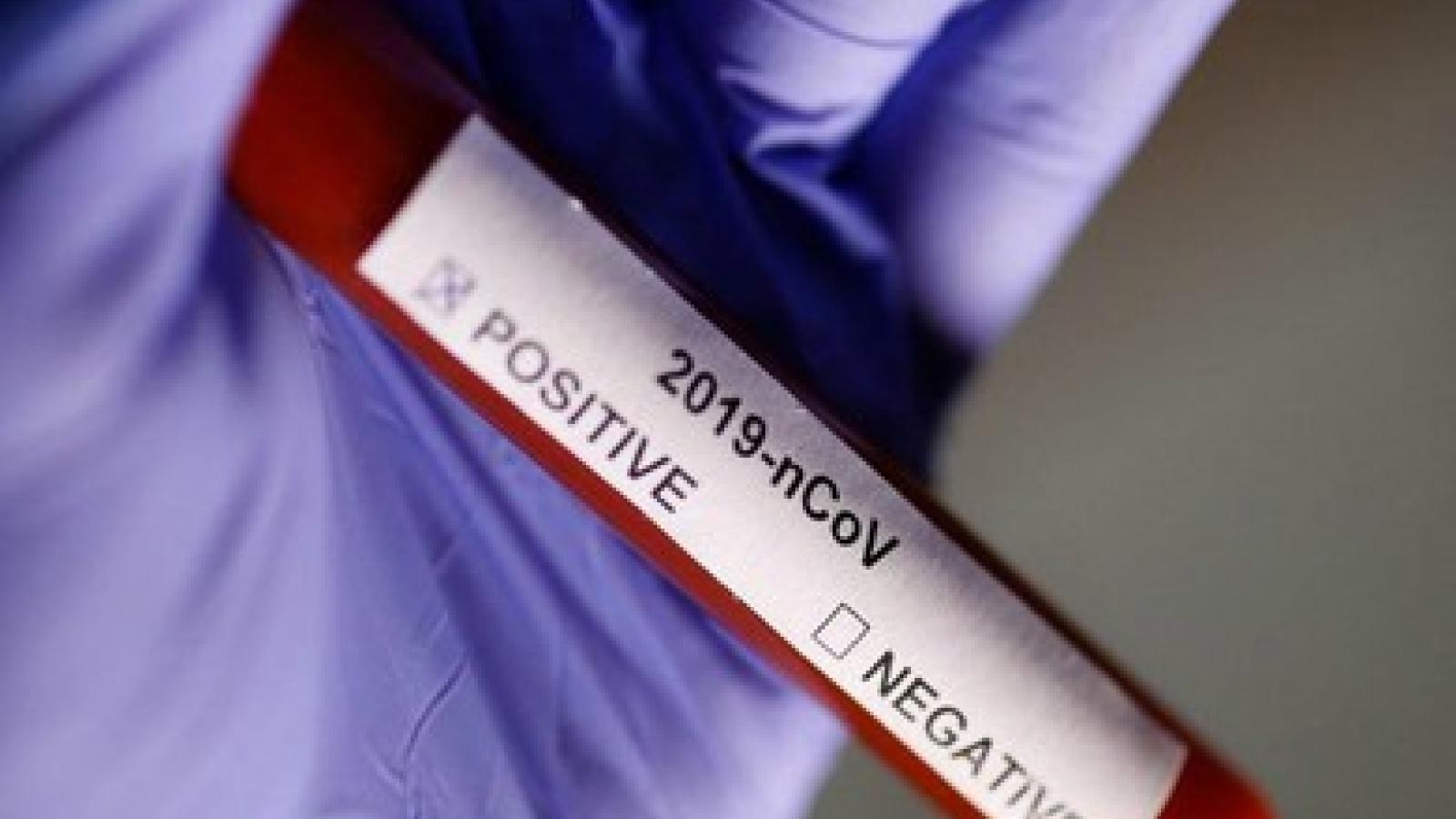 Việt Nam có ca mắc Covid-19 đầu tiên tử vong với bệnh nền suy thận giai đoạn cuối