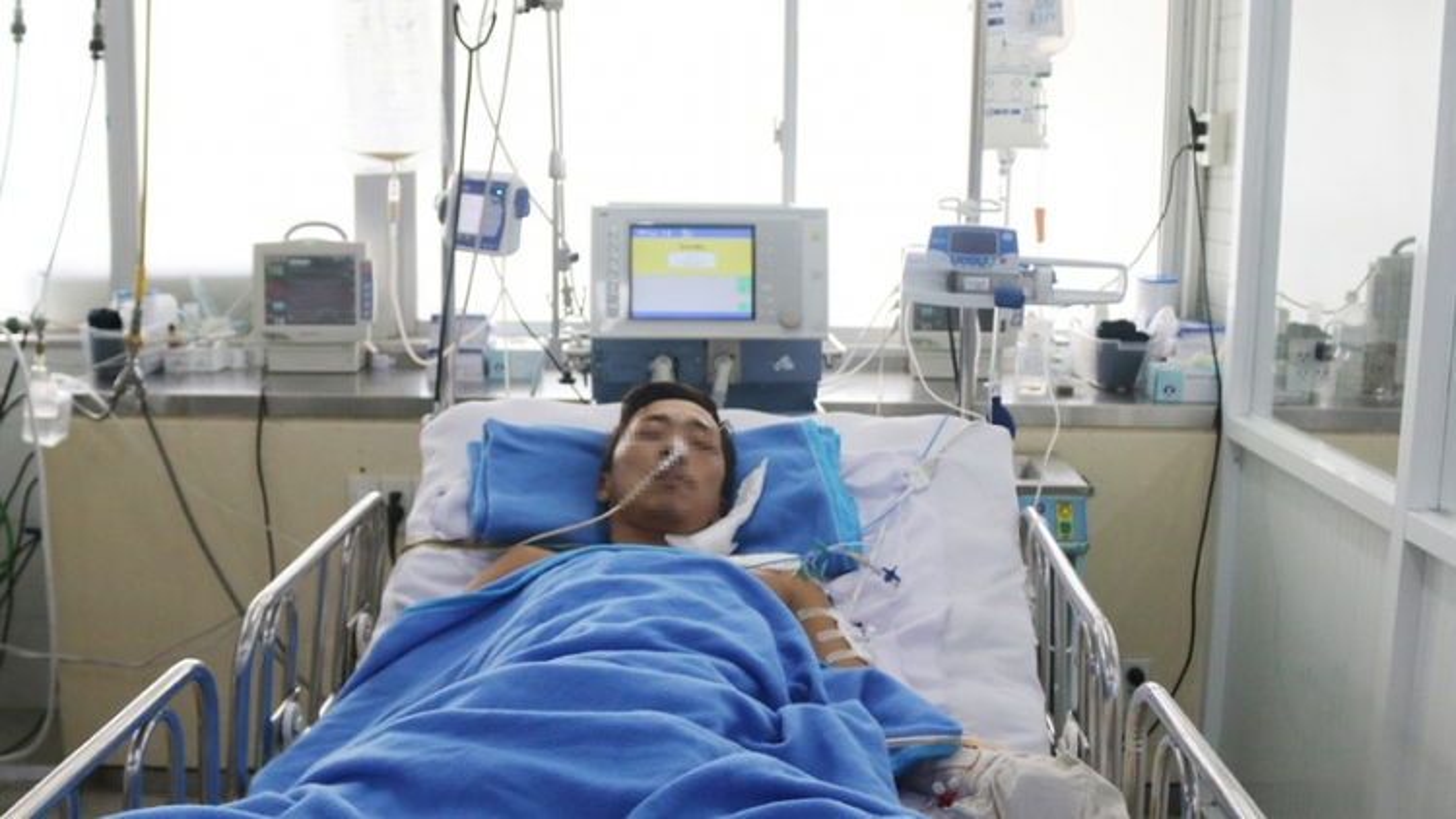 Bệnh nhân bị rắn hổ mang chúa cắn đã tự thở