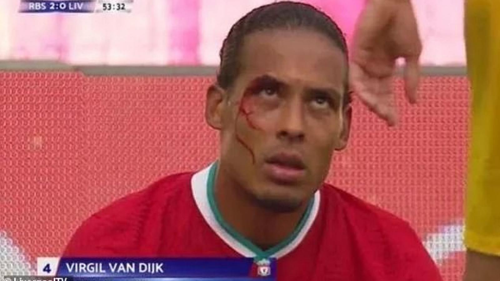 Virgil van Dijk đổ máu ở trận đấu với RB Salzburg
