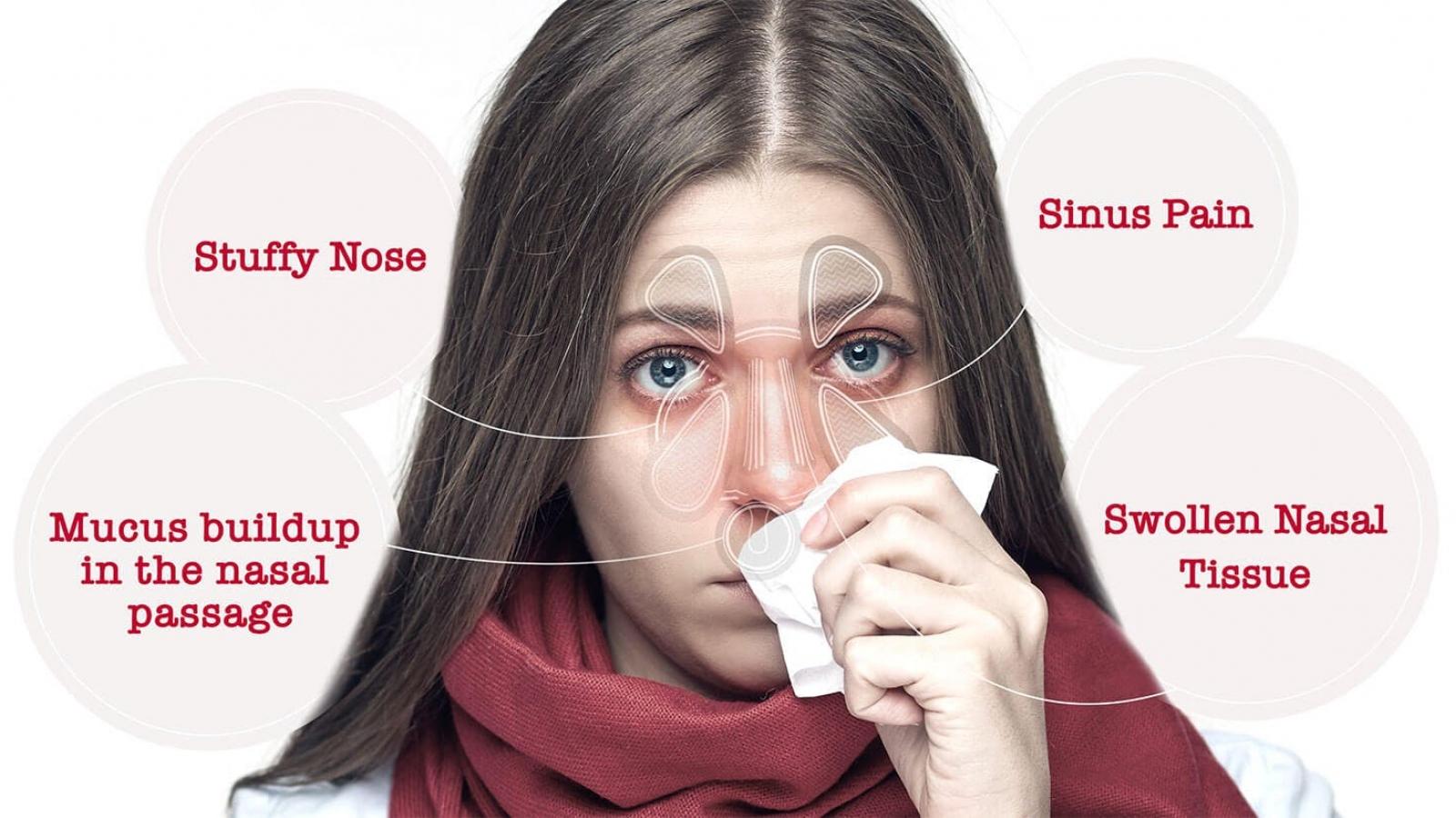 Không nên tùy tiện dùng thuốc để trị ngạt mũi