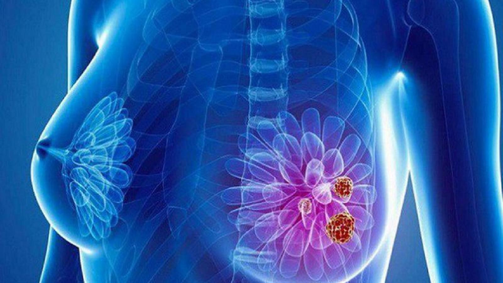 Kỹ thuật mới phát hiện sớm ung thư vú