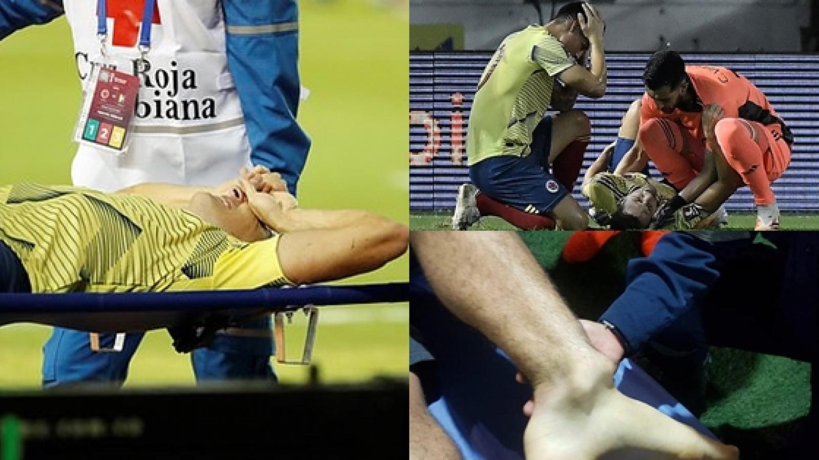 Santiago Arias dính chấn thương kinh hoàng ở vòng loại World Cup 2022