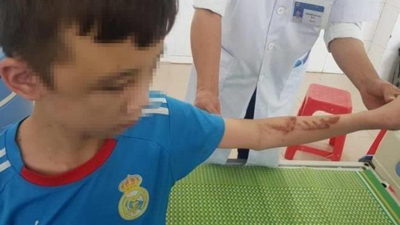 Bé trai bị tra tấn dã man ở Bắc Ninh còn là họ hàng với chủ quán bánh xèo