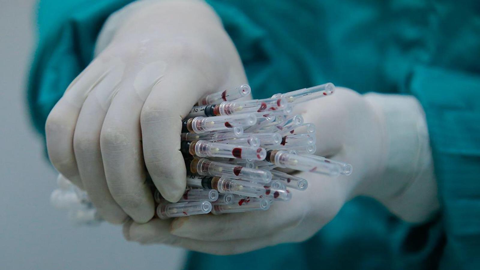 Thử nghiệm vaccine Covid-19 trên người cần dựa trên những tiêu chí nào?