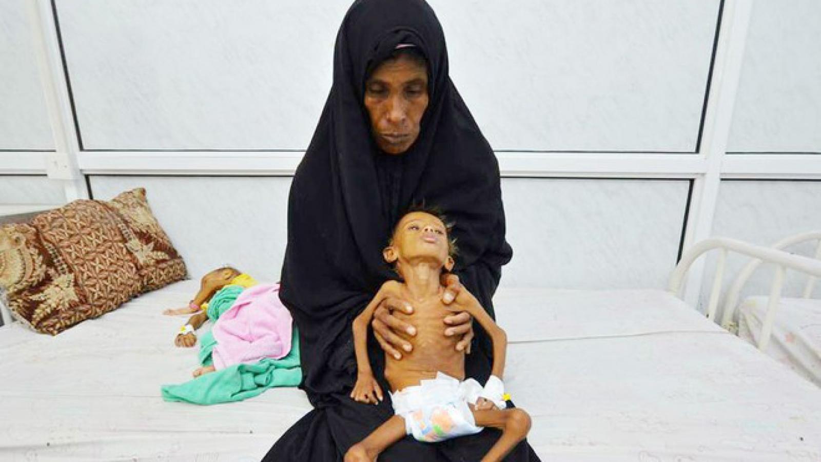 Tổng thư ký LHQ cảnh báo nạn đói tồi tệ nhất thế giới tại Yemen