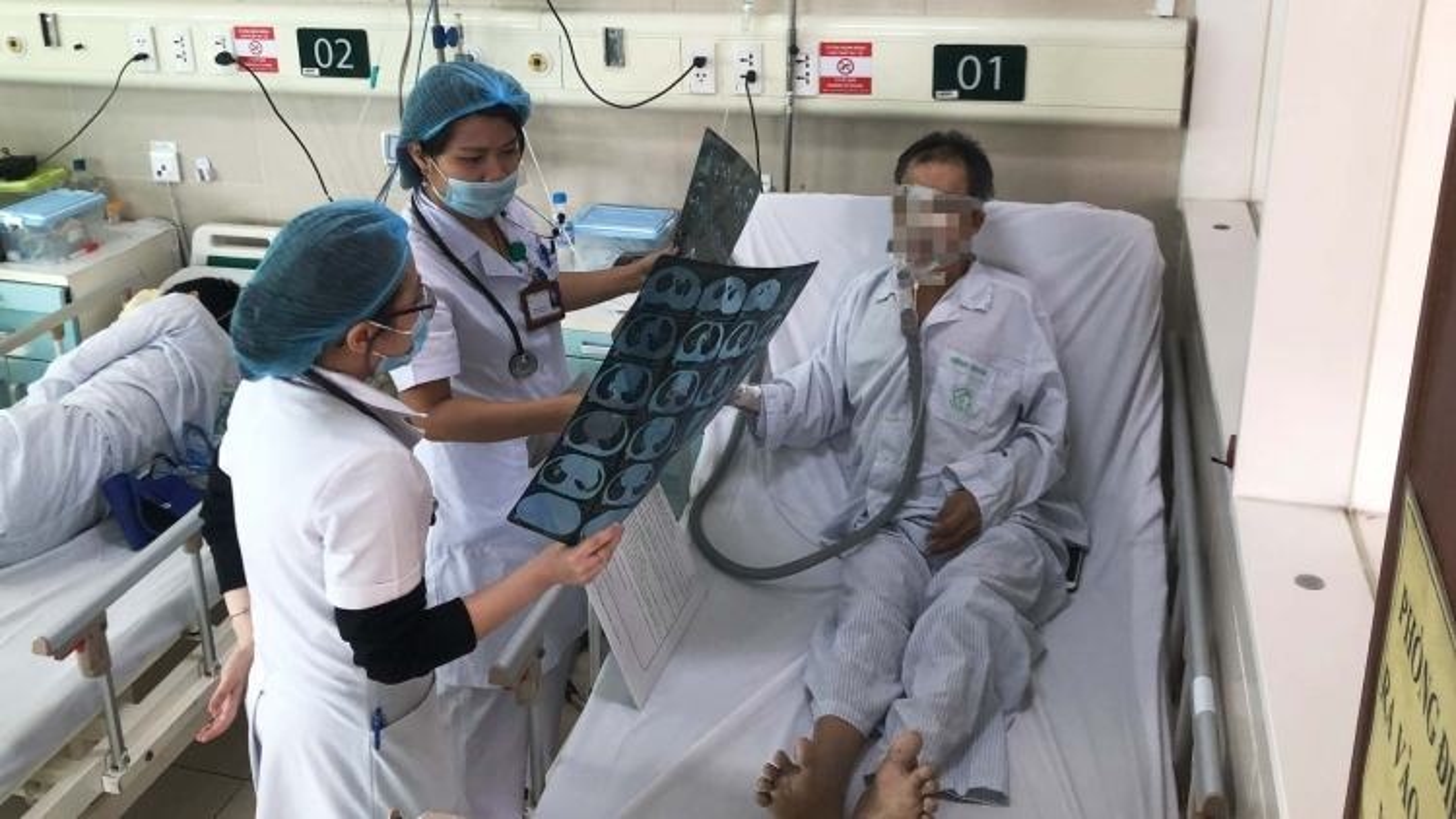 Bệnh phổi tắc nghẽn mạn tính có tỷ lệ tử vong thứ 4 trên thế giới