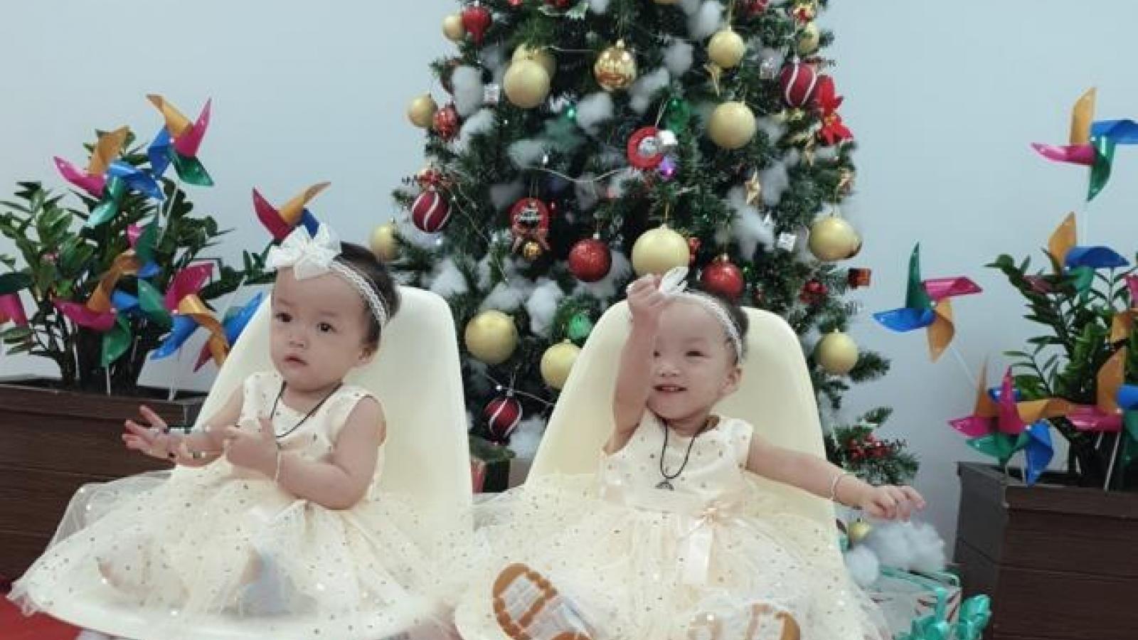 Cặp song sinh Trúc Nhi, Diệu Nhi sau 5 tháng phẫu thuật tách rời