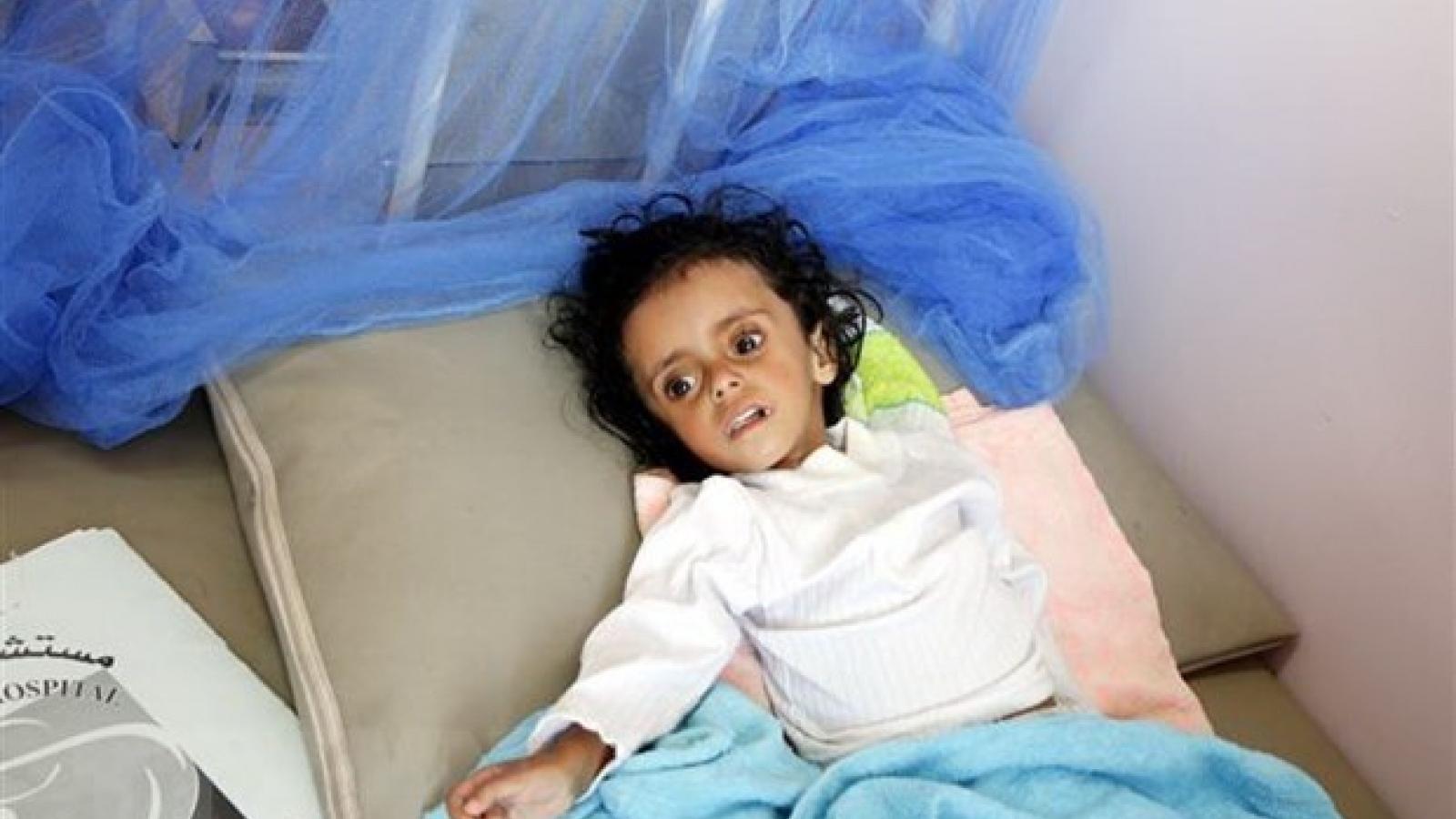 Vietnam calls for joining hands in preventing famine in Yemen