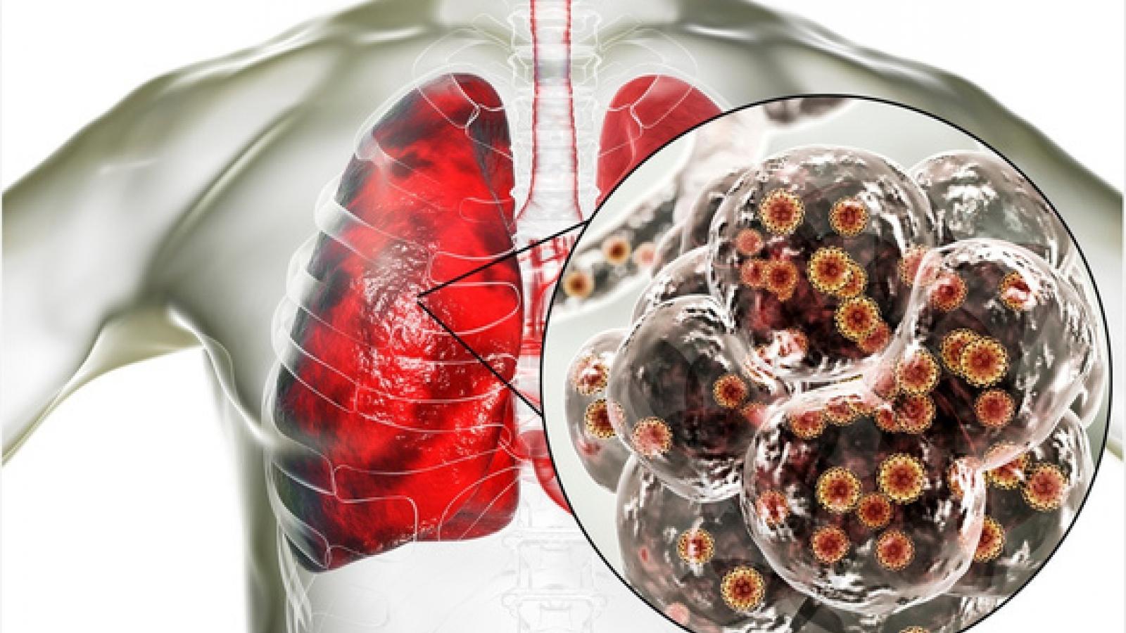 Chuyên gia WHO: Tốc độ lây lan của virus SARS-CoV-2 trên toàn thế giới đang chậm lại