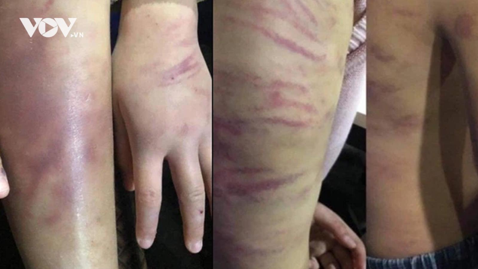 Nóng 24h: Khởi tố mẹ và người tình bạo hành, cưỡng bức bé gái 12 tuổi