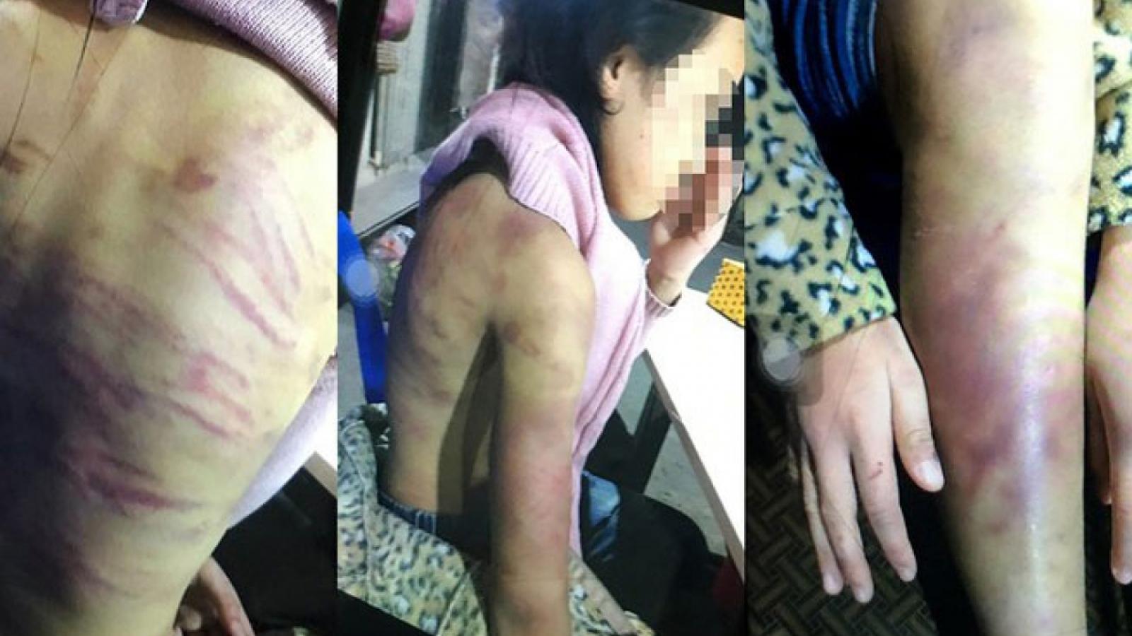 Nóng 24h: Người mẹ bạo hành con ruột tại Hà Đông còn là nỗi ám ảnh của hàng xóm