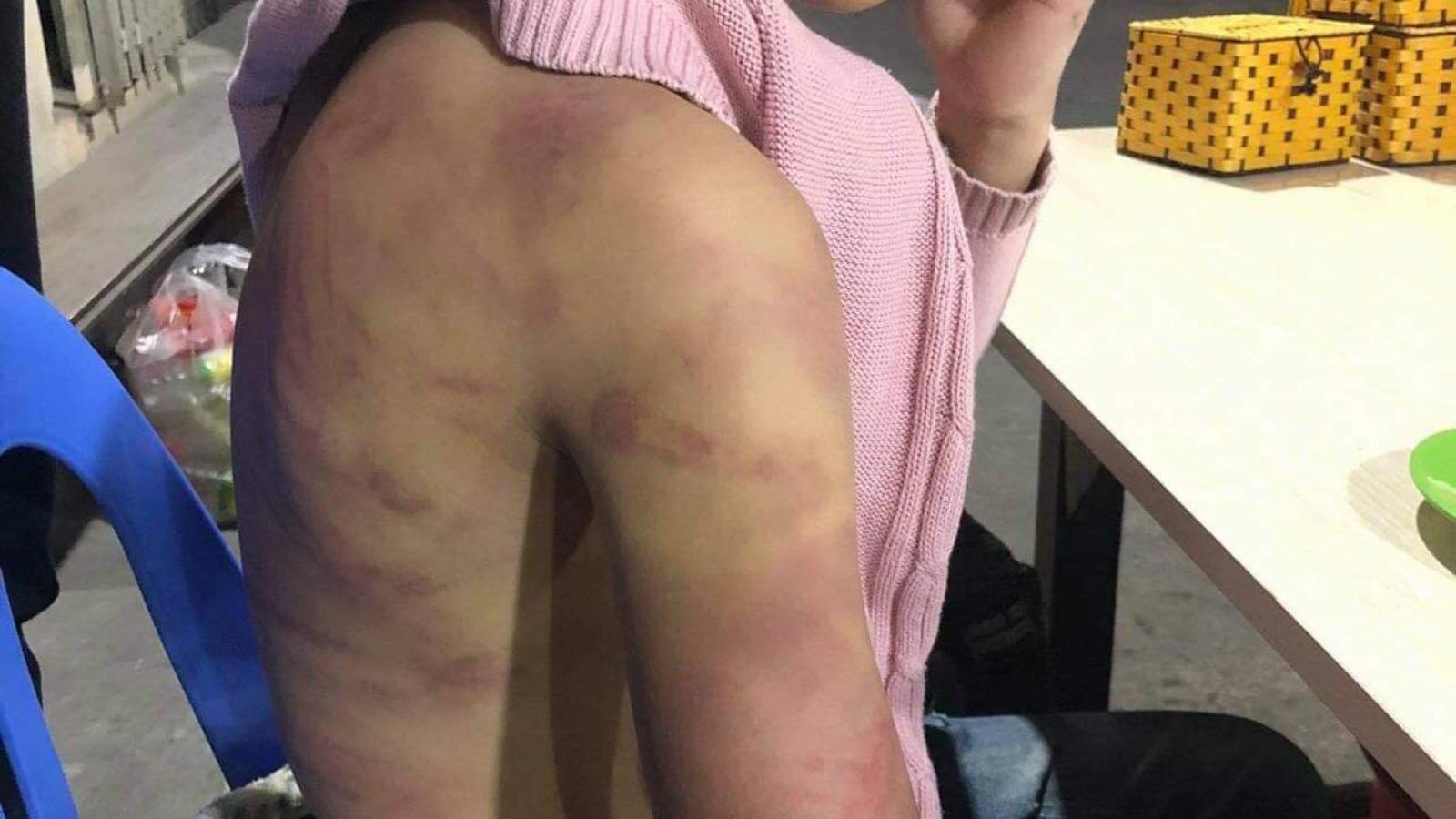 Bé gái 12 tuổi ở Hà Nội bị mẹ đẻ hành hạ dã man