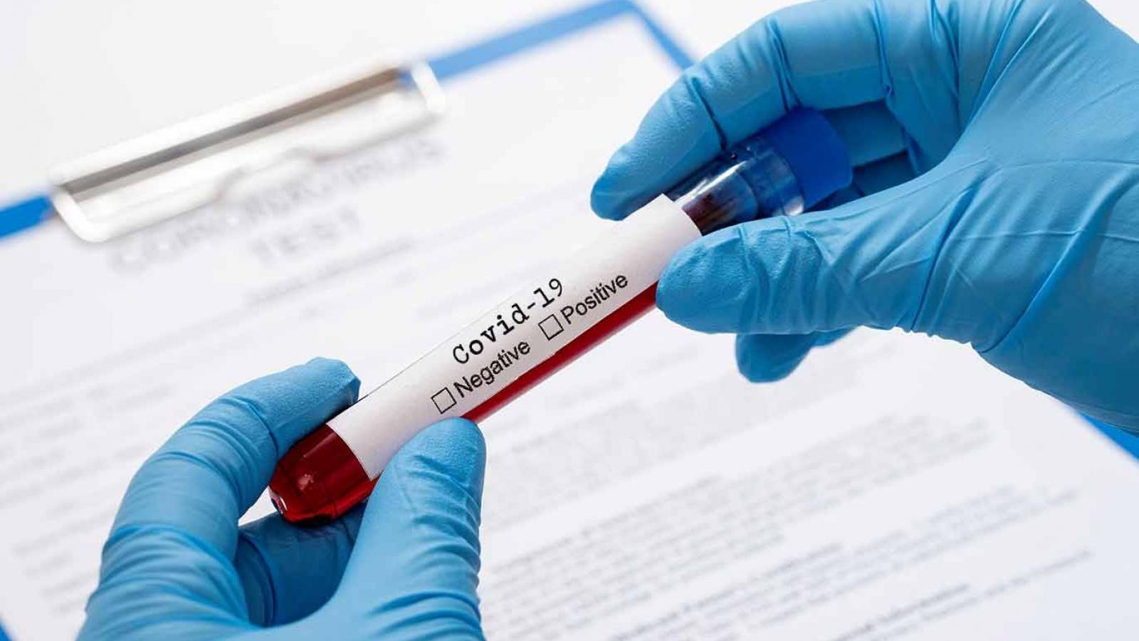Kết quả xét nghiệm4 trường hợp F1 ở Kon Tumđều âm tính lần 1với SARS-CoV-2