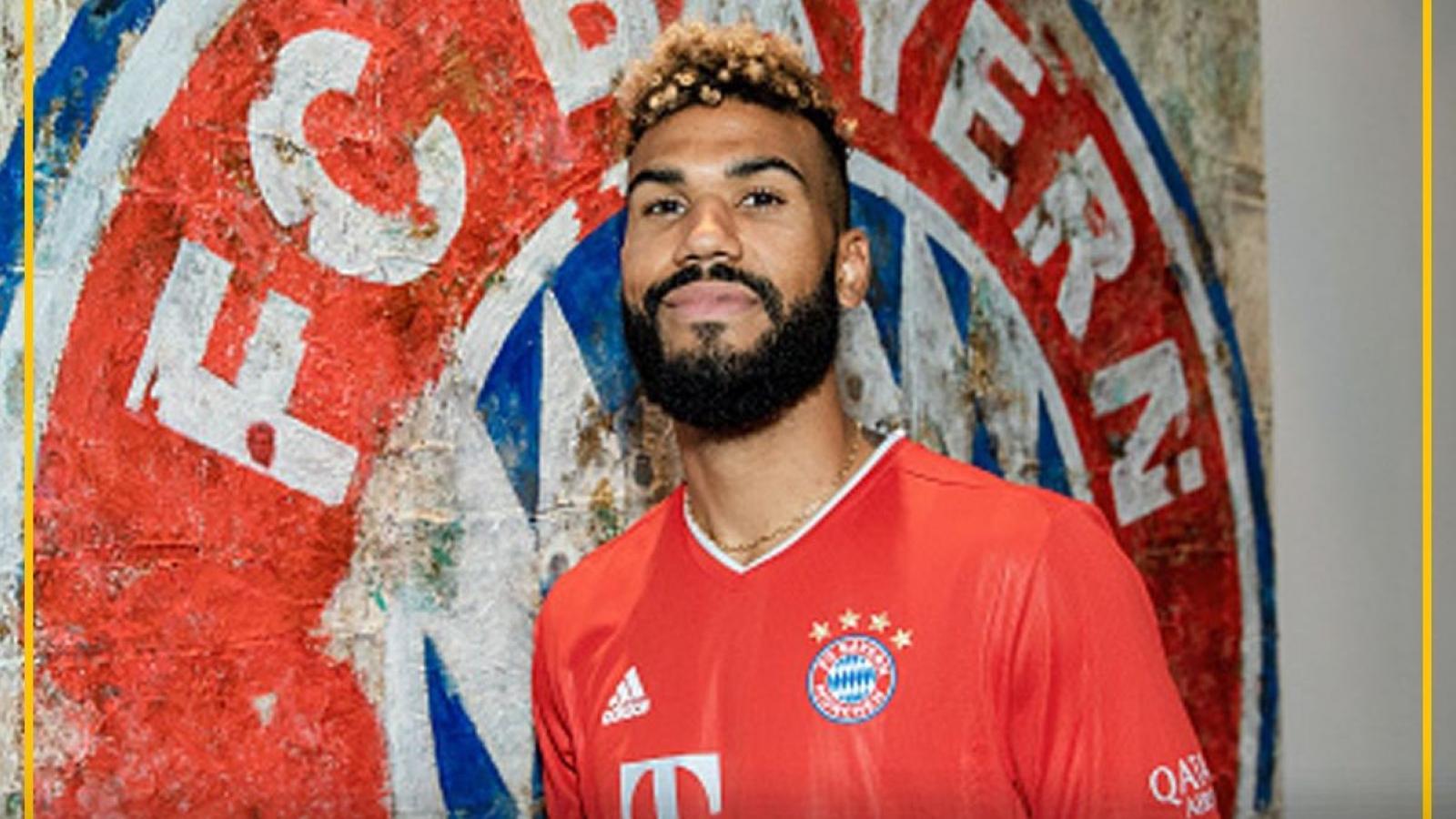 """Biếm họa 24h: """"Sao"""" Bayern Munich không thể lên tuyển vì lý do """"lãng xẹt"""""""