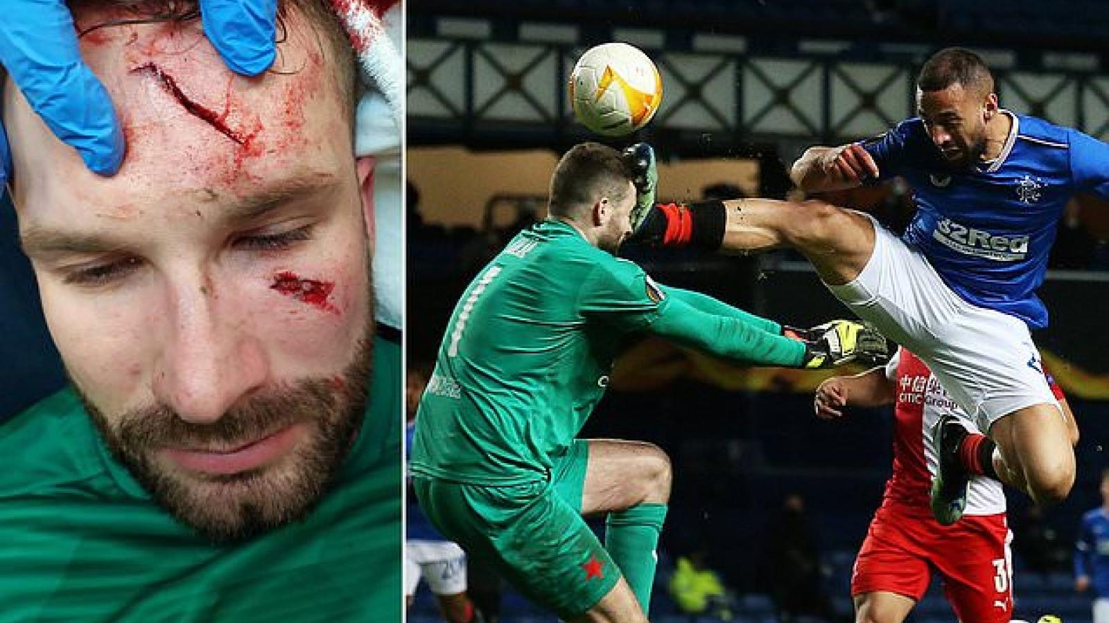 Thủ môn bị đạp thẳng vào mặt trong trận đấu bạo lực ở Europa League