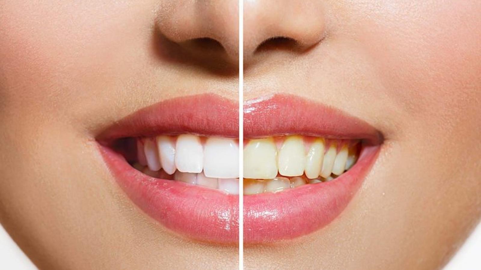 Những thực phẩm nên và không nên ăn để có hàm răng trắng sáng