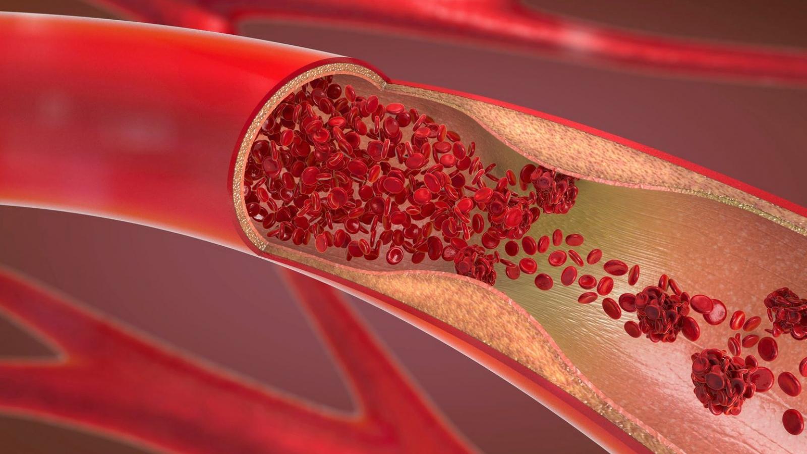 7 dấu hiệu cảnh báo có cục máu đông trong cơ thể bạn