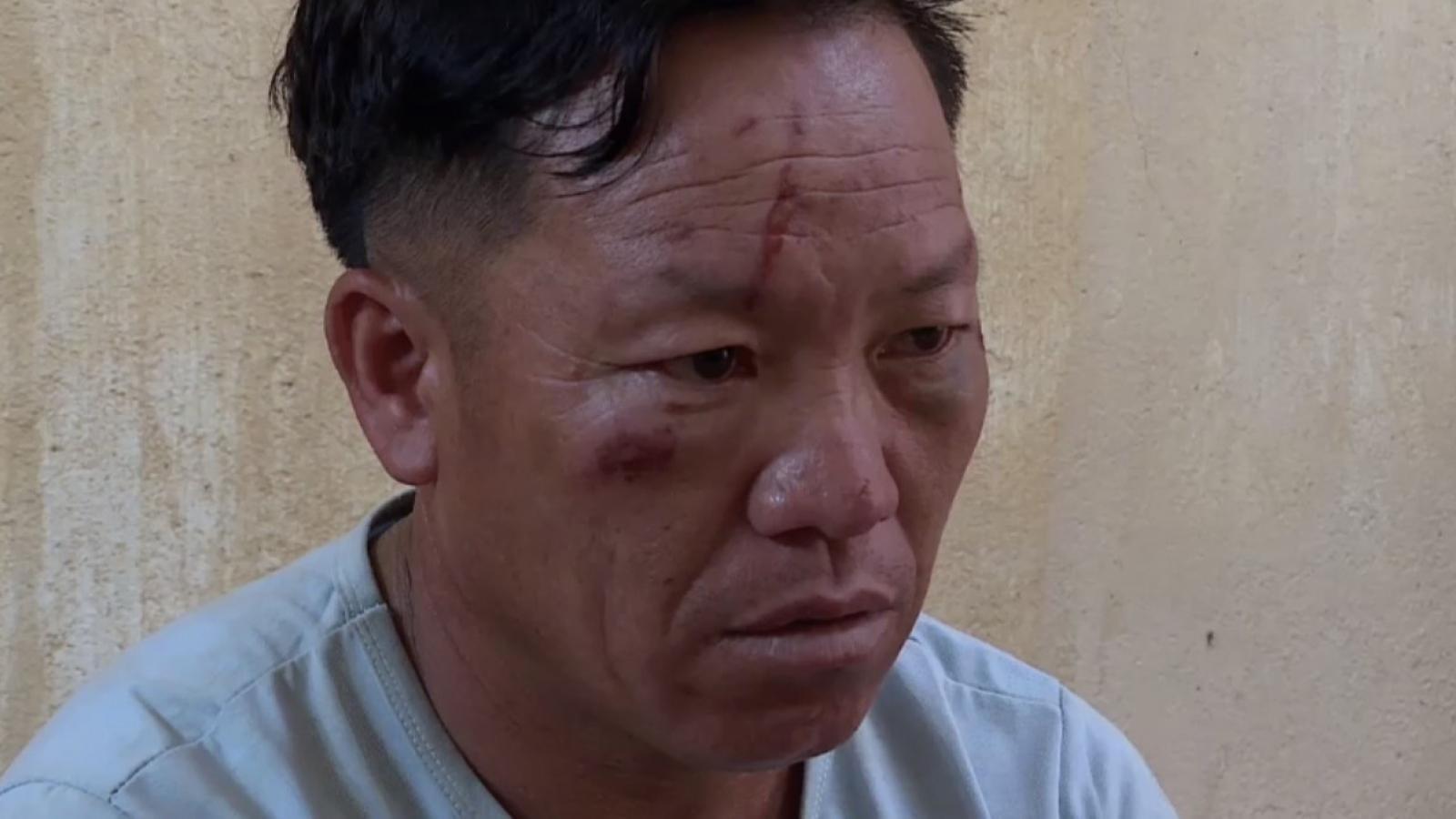 2 Công an ở Sơn La bị thương khi vây bắt đối tượng mua bán ma túy