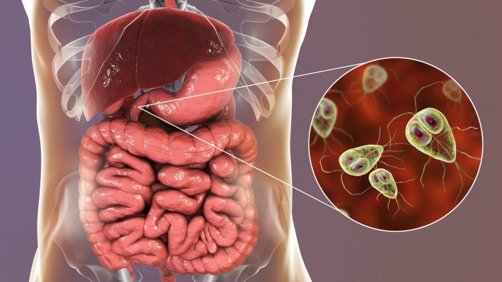 9 dấu hiệu cho thấy cơ thể bạn nhiễm ký sinh trùng