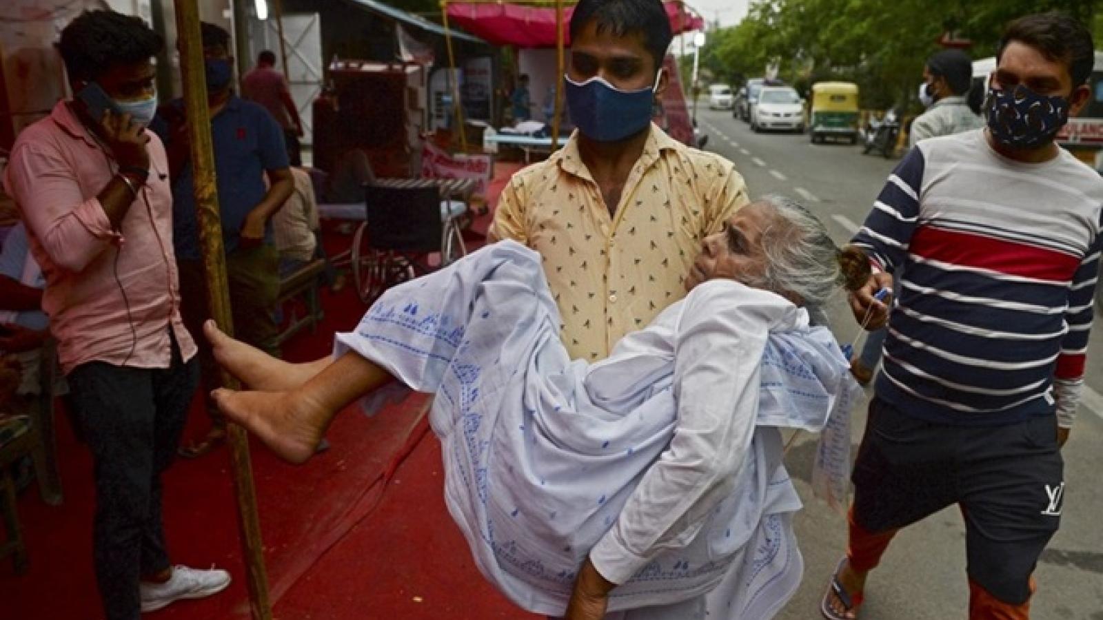 """Bệnh """"nấm đen chết người"""" song hành cùng dịch Covid-19 gieo thêm tai họa cho Ấn Độ"""