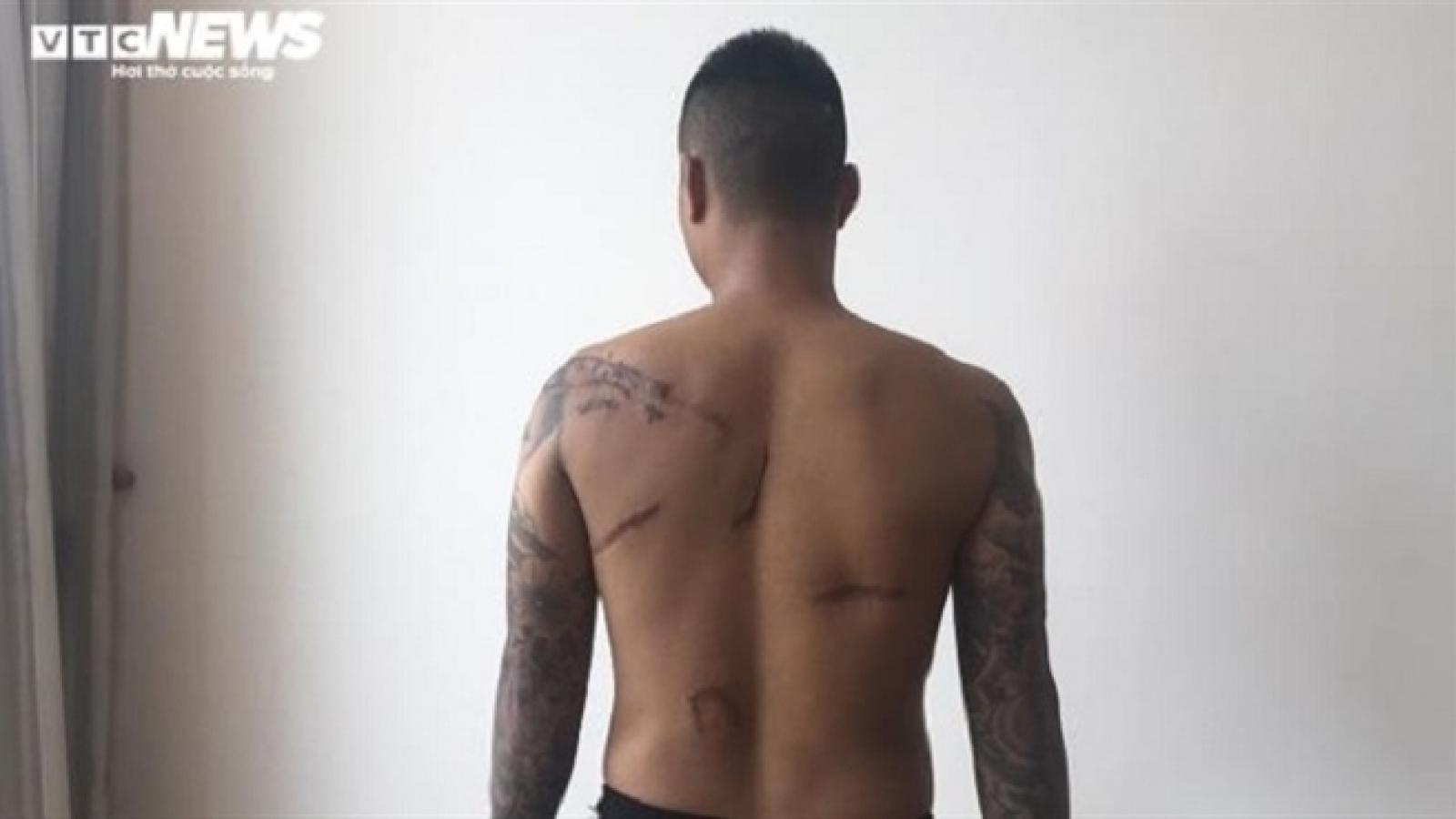 """Sắp xét xử nhóm côn đồ Thái Bình truy sát nam thanh niên sau 8 năm """"chìm xuồng"""""""