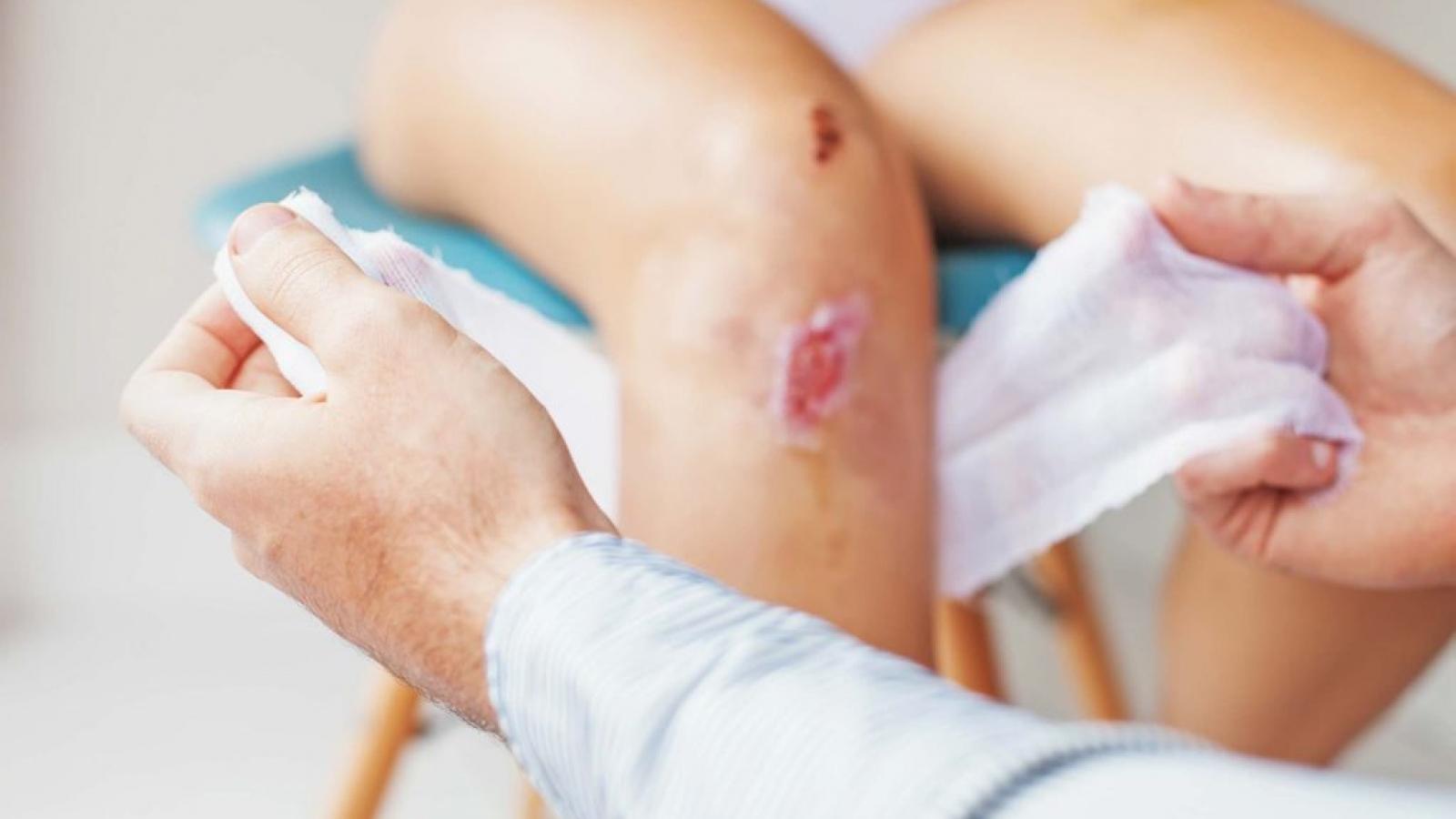 Những dấu hiệu nhiễm trùng vết thương hở mà bạn cần lưu ý