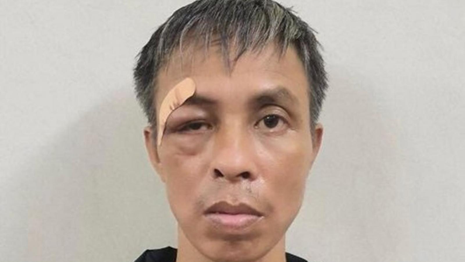Bệnh nhân trong viện cầm mảnh kính vỡ đâm người vì...buồn chán