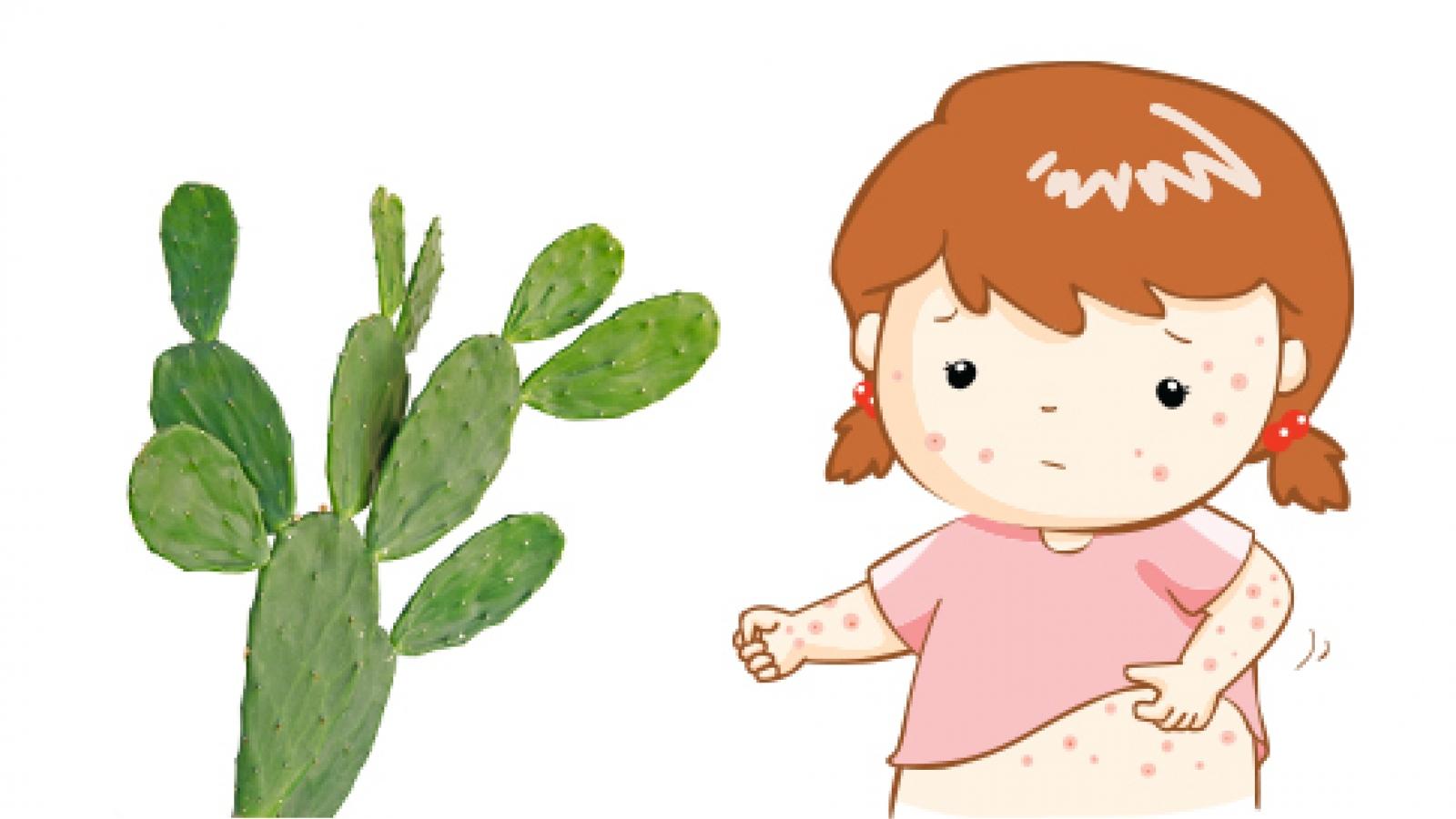 Bảo vệ sức khỏe của bé trong mùa nóng bức