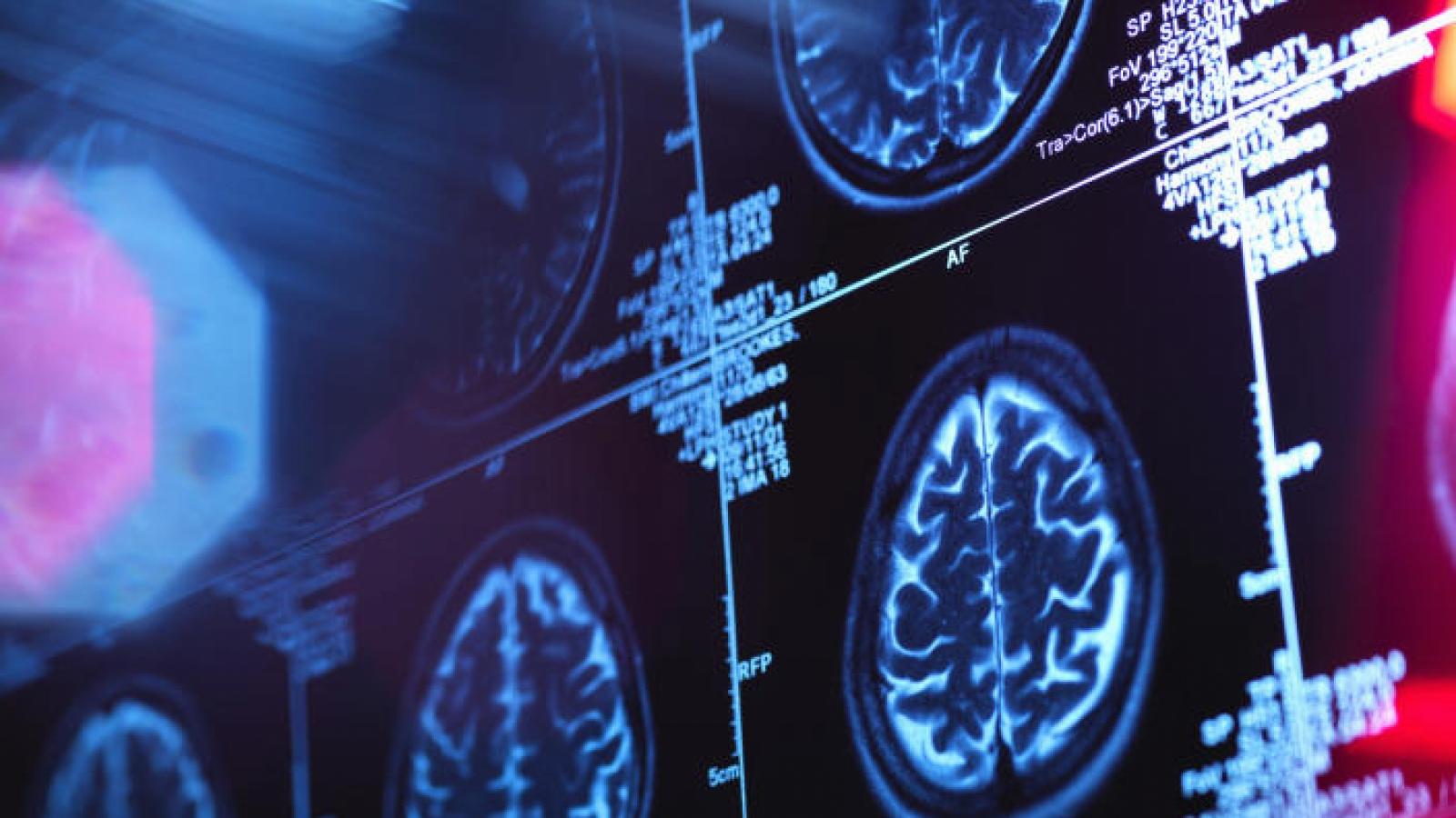 COVID-19 có thể làm thay đổi cấu trúc vật lý của não
