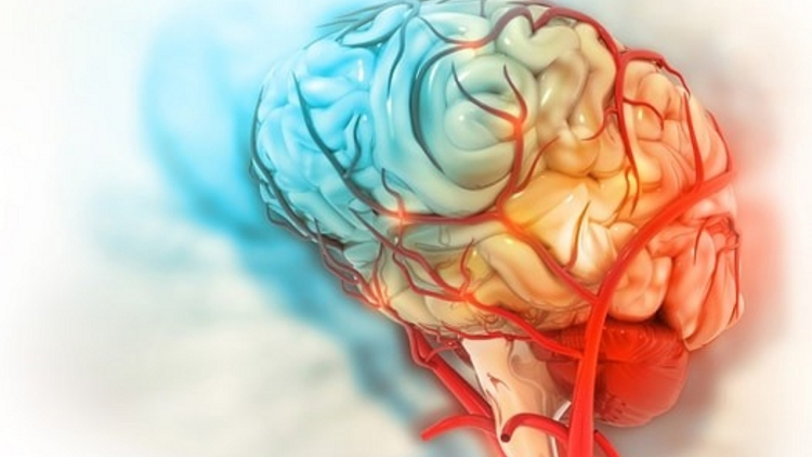 COVID-19 có thể gây tổn thương não lâu dài
