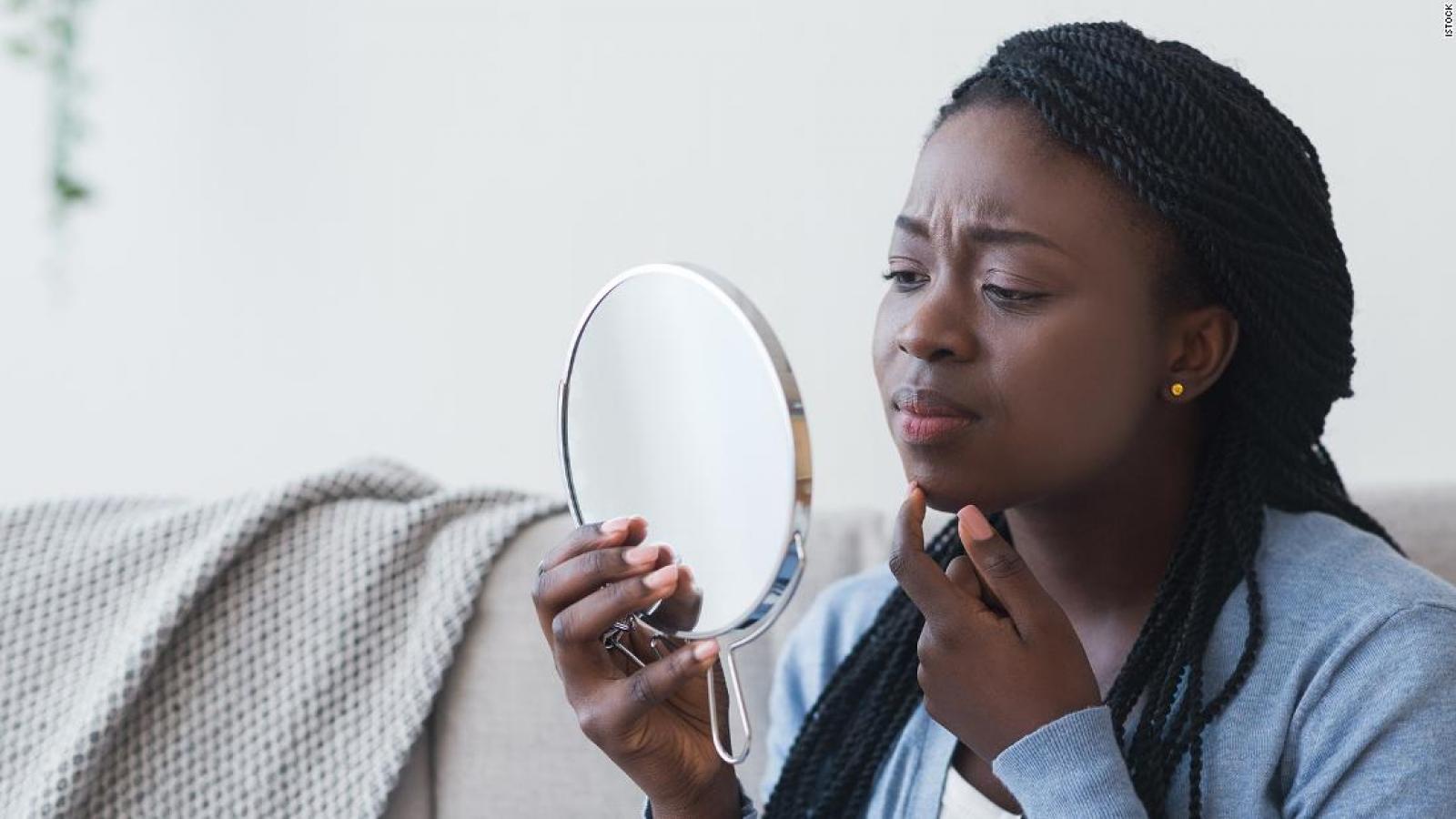 Nổi mụn, thâm sạm và nếp nhăn - những dấu hiệu của làn da bị stress