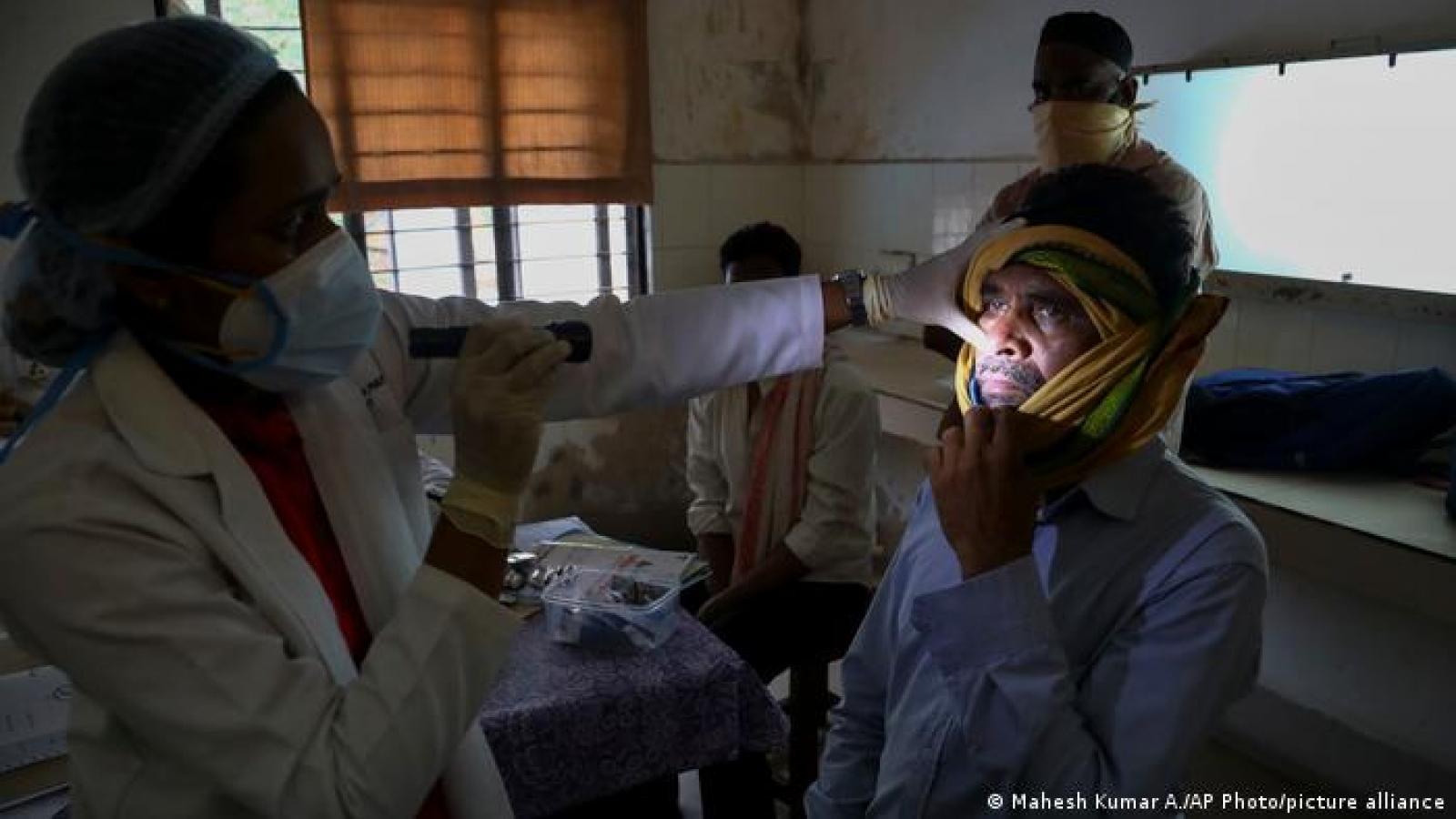Bệnh nấm đen gia tăng mạnh ở những bệnh nhân Covid-19 đã hồi phục tại Ấn Độ