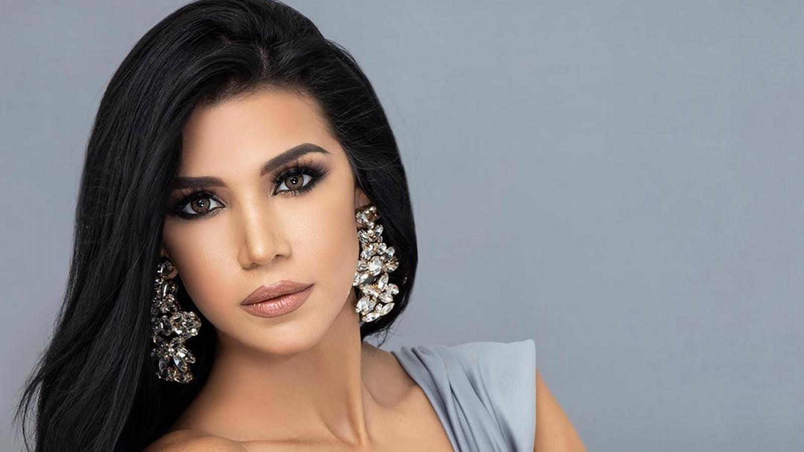Ngắm nhan sắc rạng ngời của thí sinh Hoa hậu Venezuela