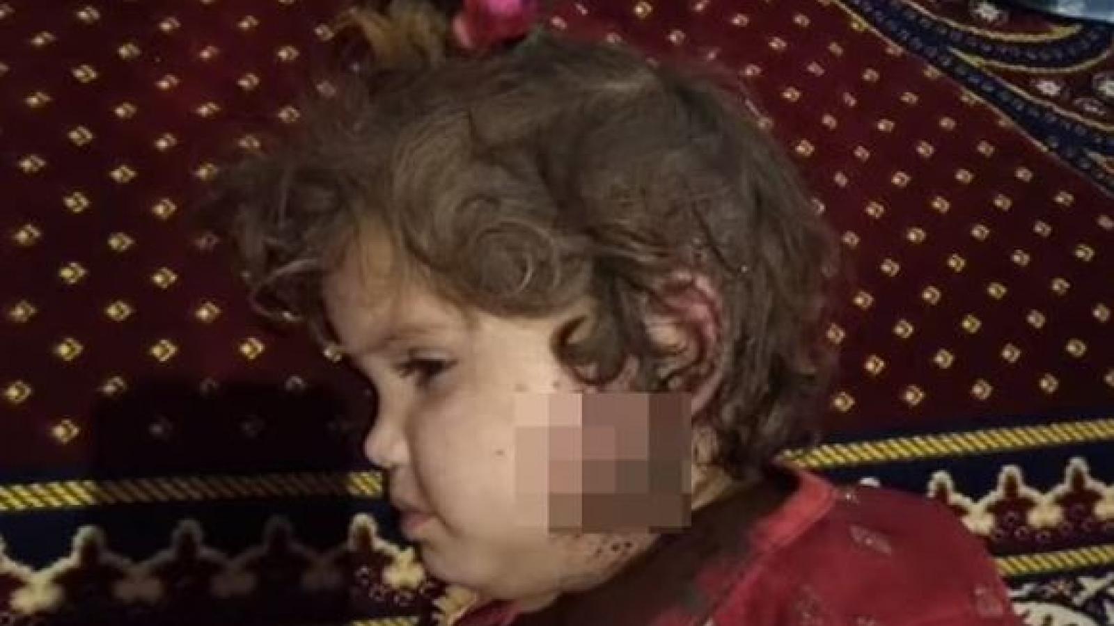 Cựu Bộ trưởng Afghanistan đăng hình ảnh tố Taliban giết hại trẻ em vô tội