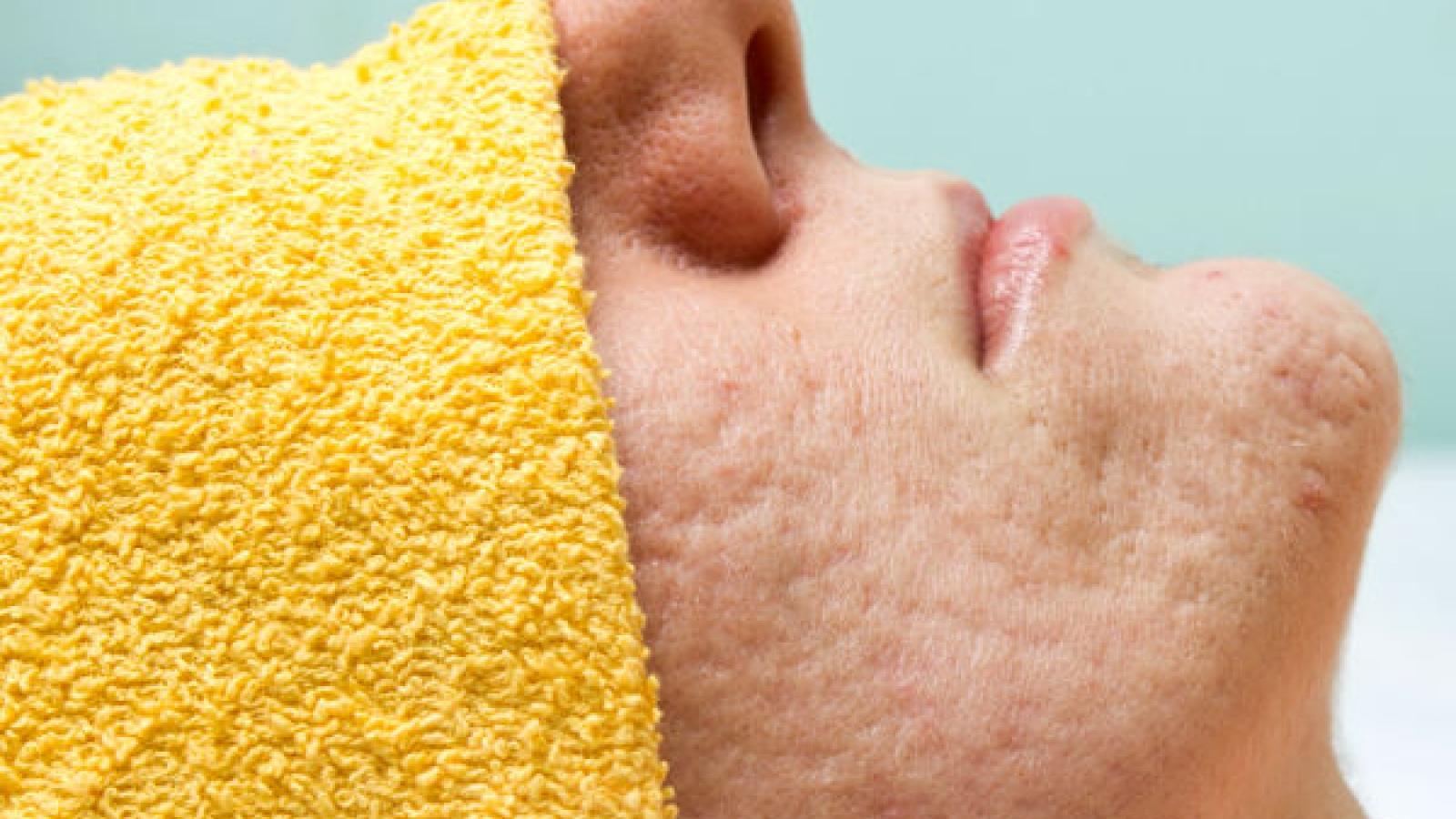 Những nguyên nhân chính gây tình trạng lỗ chân lông to