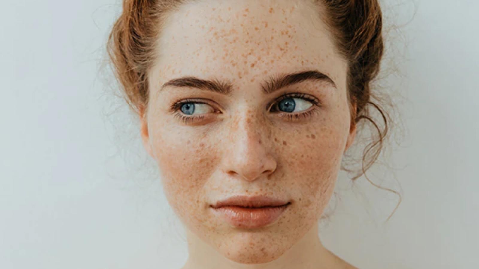 9 mẹo đối phó với tàn nhang trên mặt