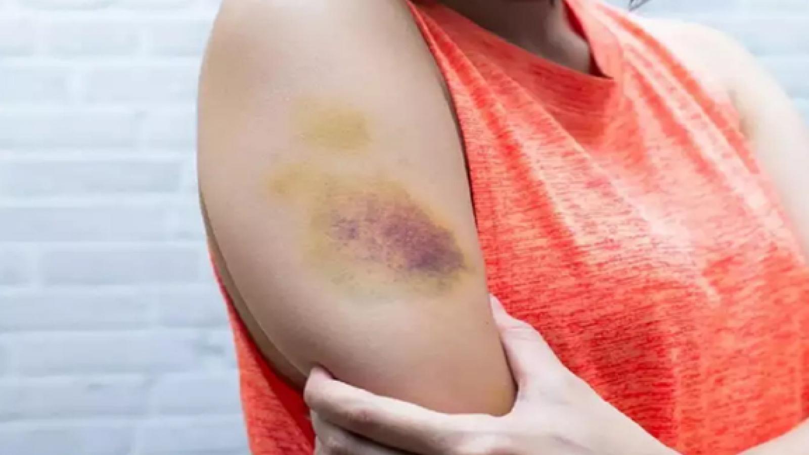 Tại sao bạn không bị chấn thương nhưng vẫn xuất hiện các vết bầm tím trên cơ thể?