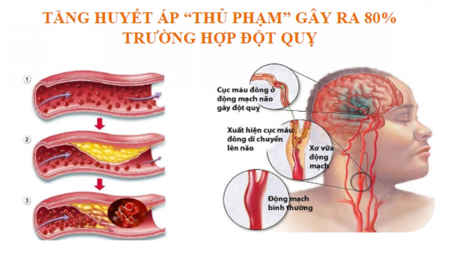 Trên 80% người bị tăng huyết áp ở Việt Nam chưa được điều trị