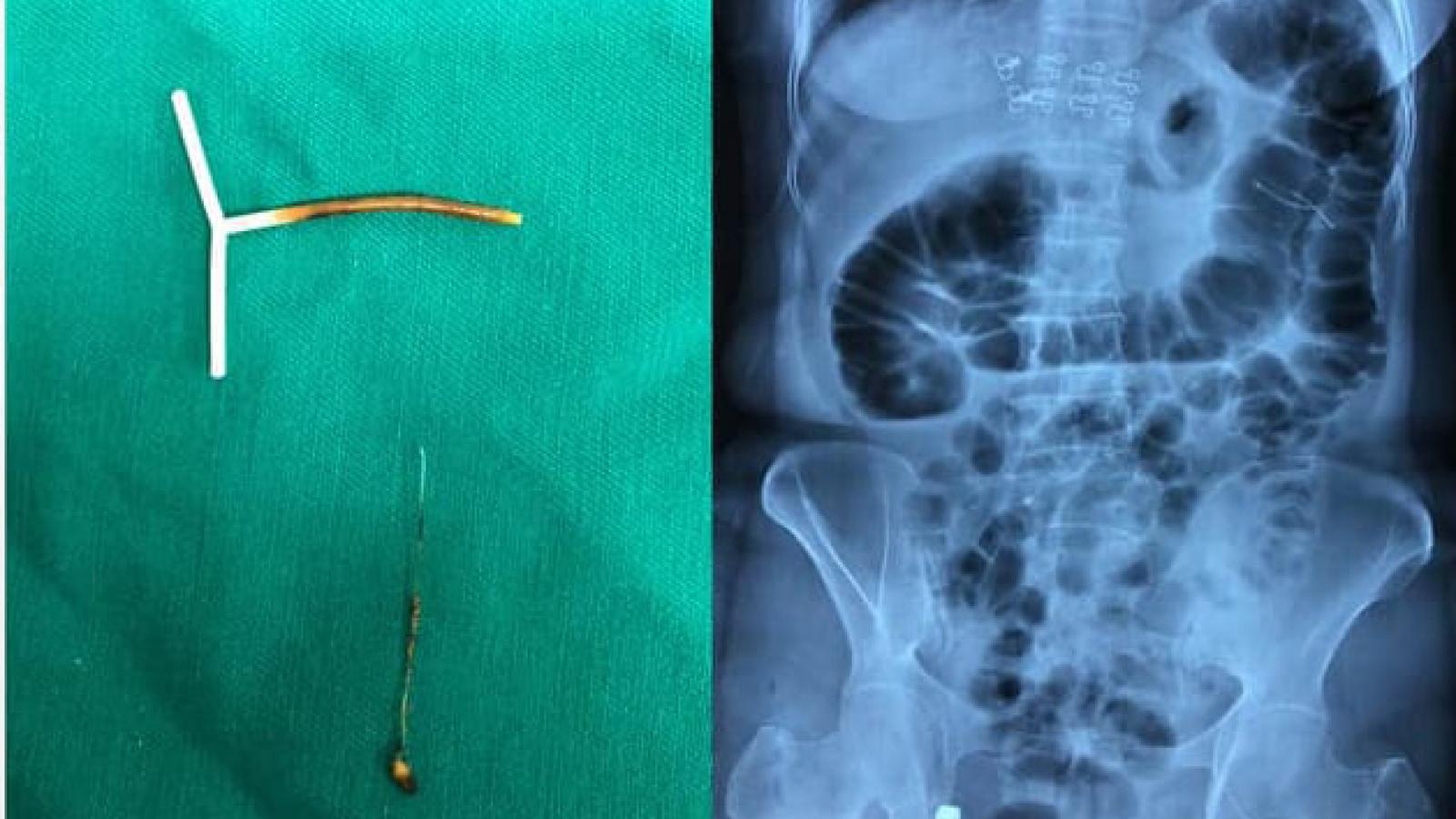 Phát hiện dị vật vòng tránh thai mắc, xuyên thủng đại tràng bệnh nhân