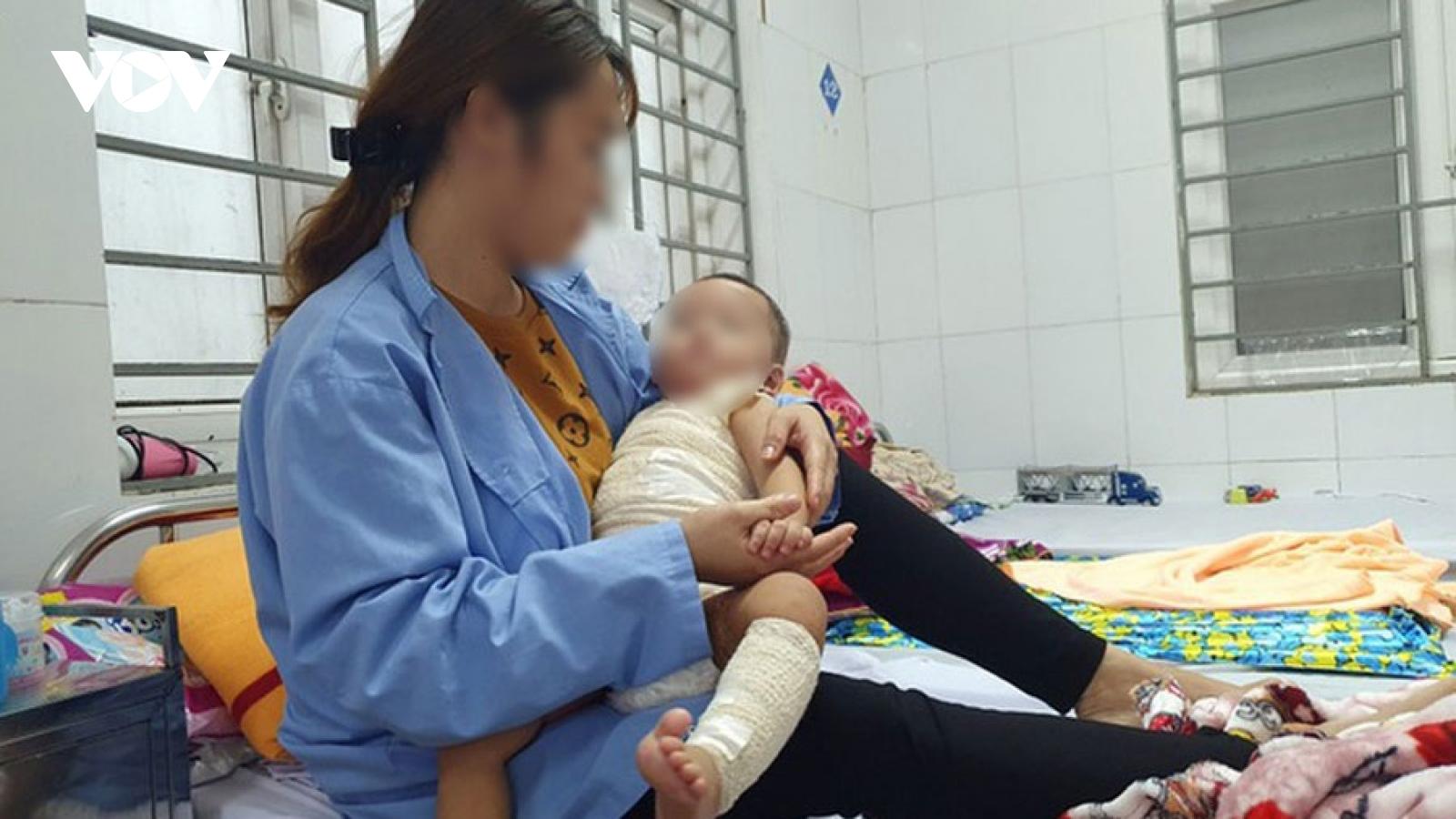 Chữa bỏng bằng thuốc lá, bé 13 tháng tuổi bị nhiễm trùng nặng