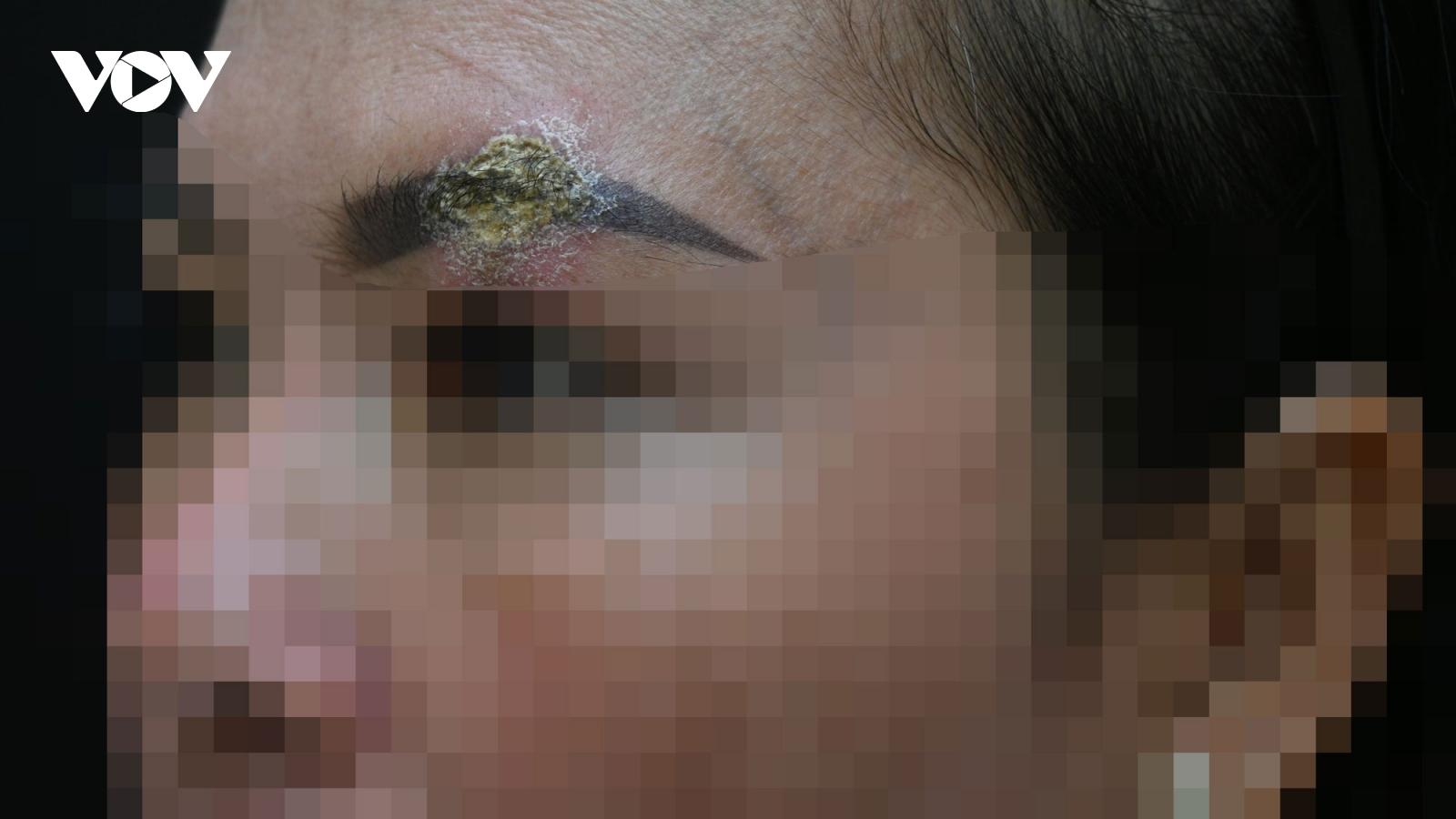 Xăm môi làm đẹp, 1 phụ nữ bị tai biến nhiễm trùng