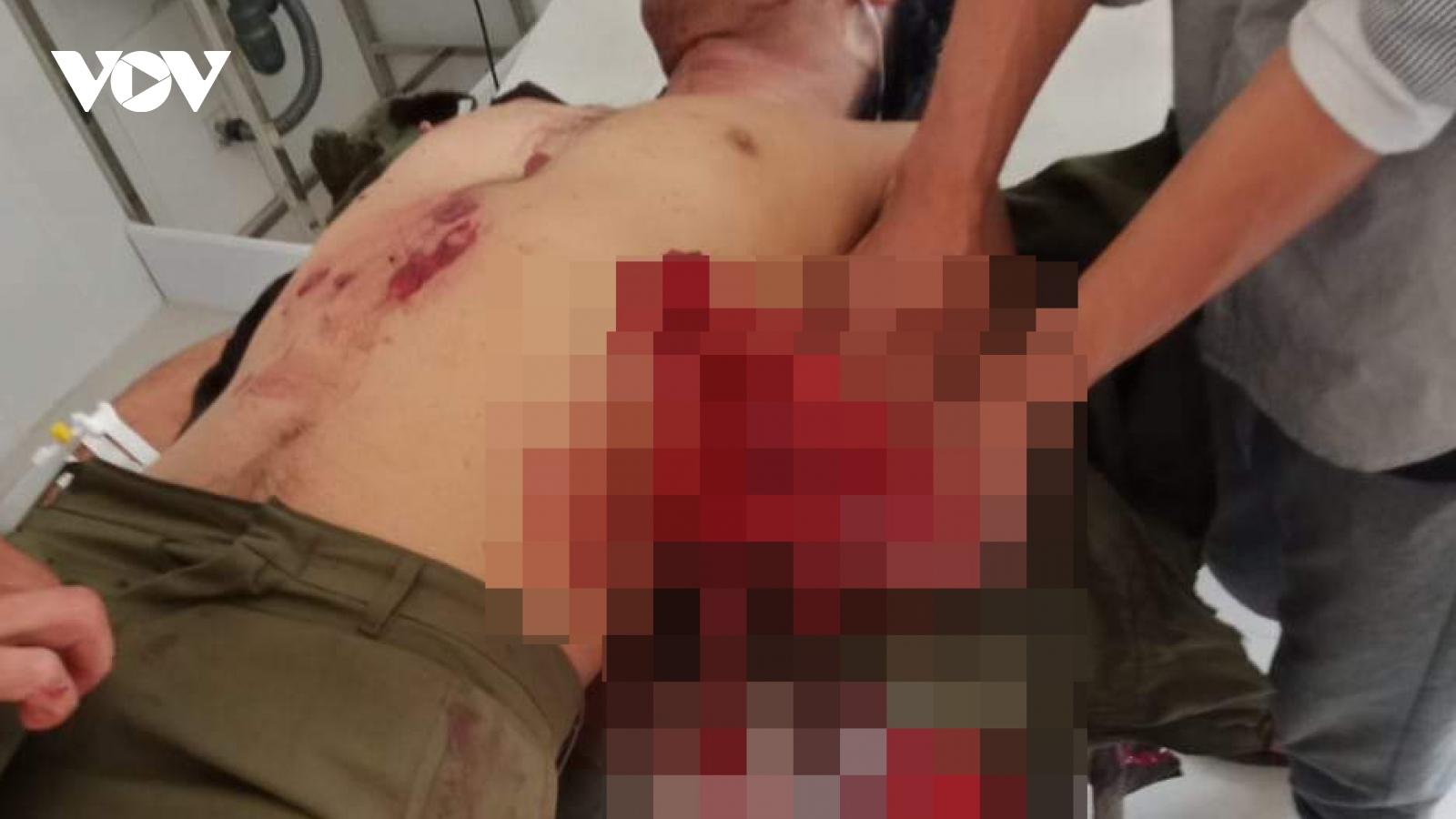 Chế mìn đánh cá gây nổ khiến 7 người bị thương