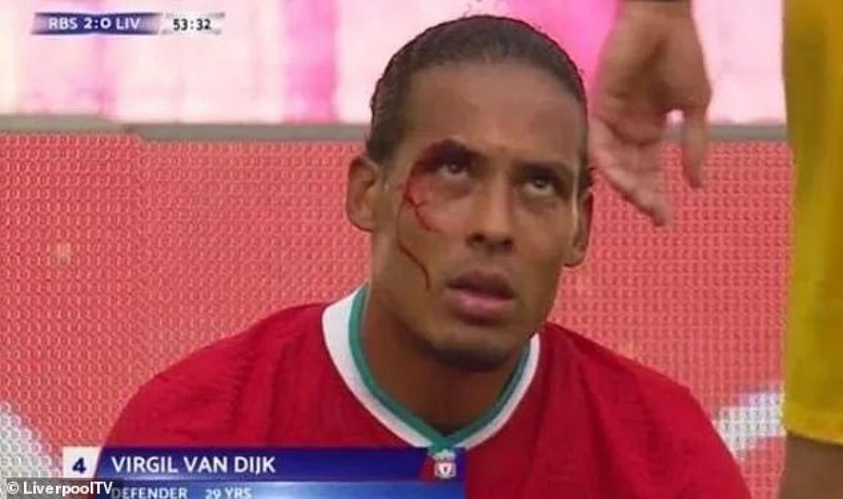 Virgil van Dijk của Liverpool dính chấn thương sau khi va chạm với cầu thủ của RB Salzburg.