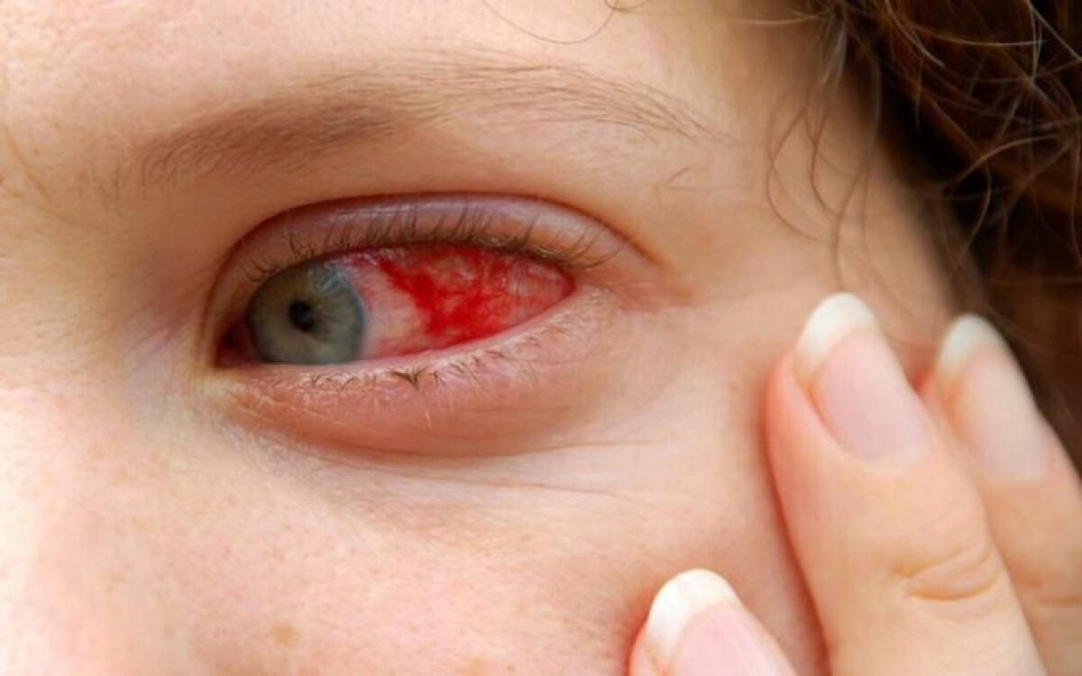 Biến chứng về mắt: Sốt xuất huyết có thể dẫn đến mù đột ngột do xuất huyết võng mạc hoặc xuất huyết trong dịch kính mắt làm mắt bị mờ.