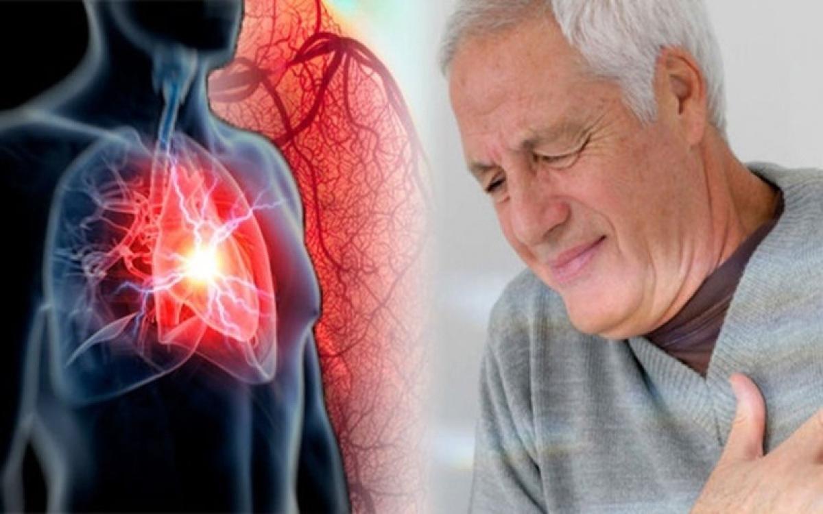 Suy tim, thận: Sốt xuất huyết có thể dẫn đến suy tim do chảy máu liên tục, khiến tim không đủ máu tuần hoàn.