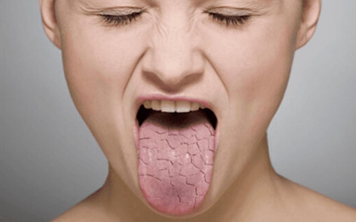 Hội chứng Sjogren: Biểu hiện lâm sàng ở trẻ mắc bệnh là bị khô miệng, đau nhức răng miệng, mệt mỏi, ăn uống kém.