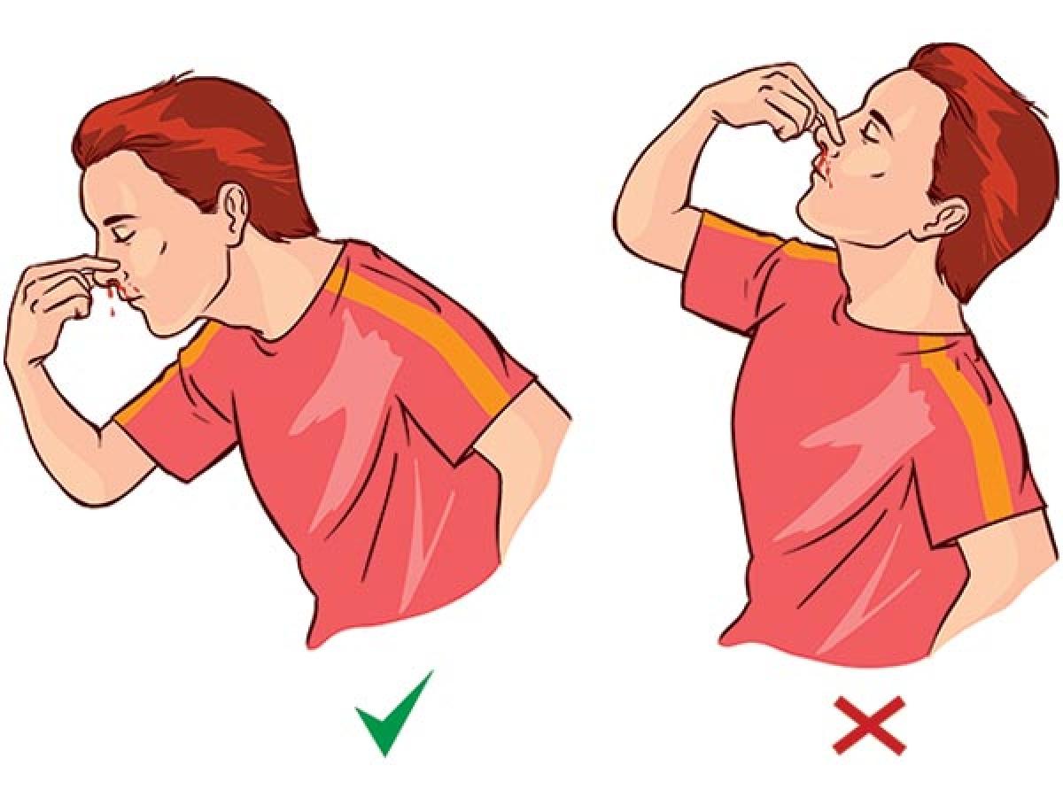 Không ngửa đầu ra sau khi bị chảy máu mũi: Ngửa đầu ra sau khi bị chảy máu mũi có thể khiến máu chảy ngược vào khí quản hoặc phổi, gây khó thở và nôn mửa. Thay vào đó, hãy ngả người về phía trước và bóp nhẹ sụn đầu mũi vài phút cho đến khi máu ngừng chảy.