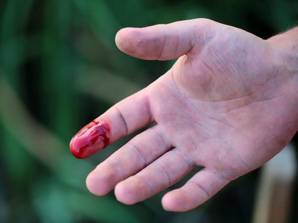 Không dùng vải buộc chặt vết thương đang chảy máu: Dùng vải buộc chặt vết thương đang chảy máu có thể gây áp lực lên mạch máu và dẫn đến máu chảy nhiều hơn. Bạn chỉ nên buộc phần phía trên vết thương do rắn cắn để ngăn độc tố lan ra các phần khác của cơ thể.